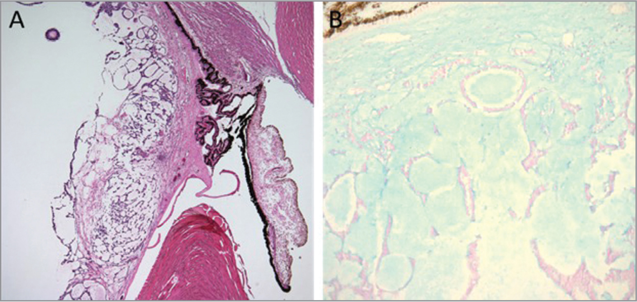Histopathology revealed a tumor composed of basophilic cells in ribbons, cords, and cysts overlying the pars plana with extension along the posterior aspect of the crystalline lens to the contralateral ciliary body and pars plicata. Cystic structures stained positively for mucopolysaccharides on Alcian blue staining.