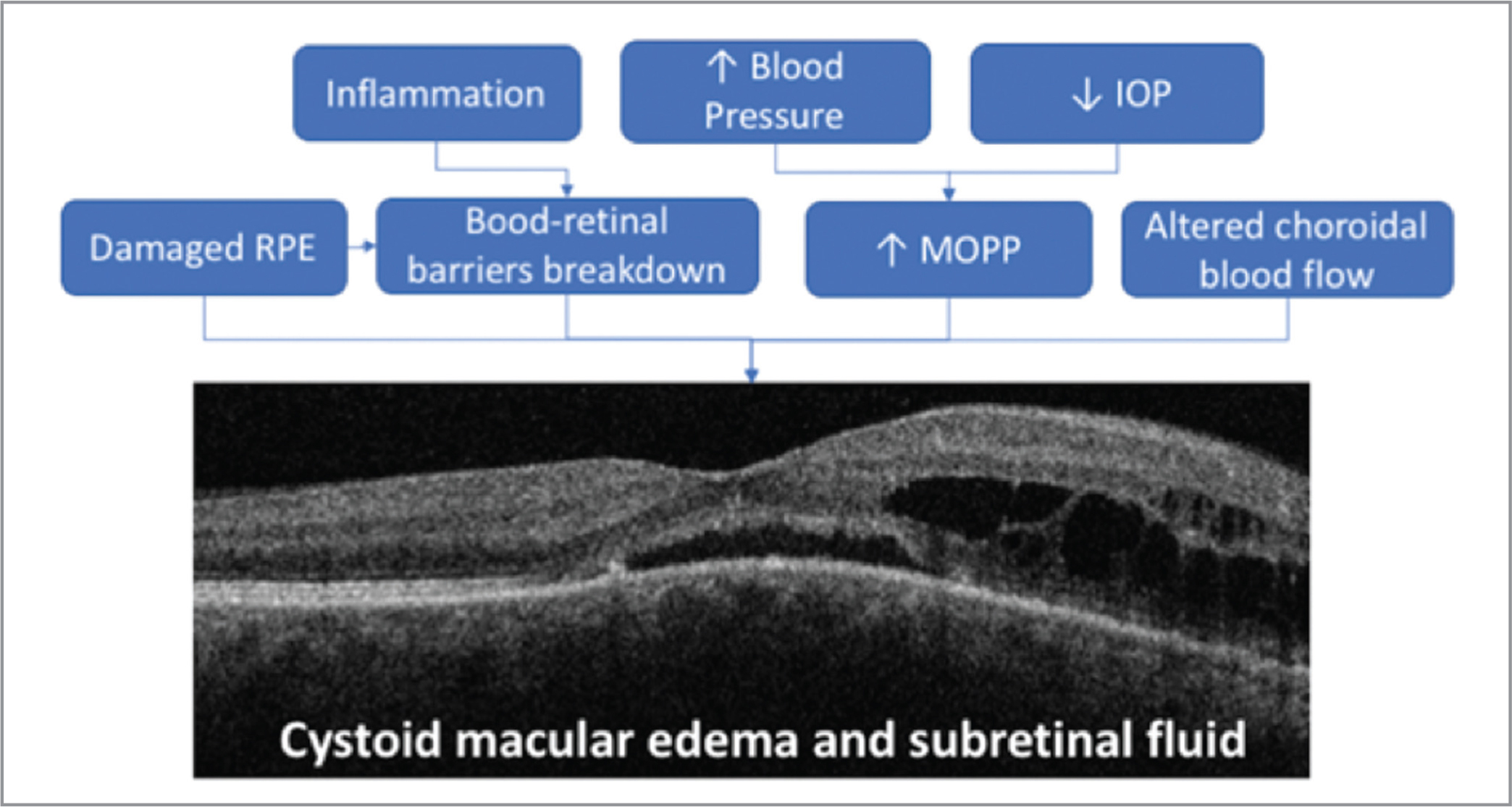Pathogenesis of macular exudative phenomena associated with circumscribed choroidal hemangioma. RPE = retinal pigment epithelium; MOPP = mean ocular perfusion pressure.