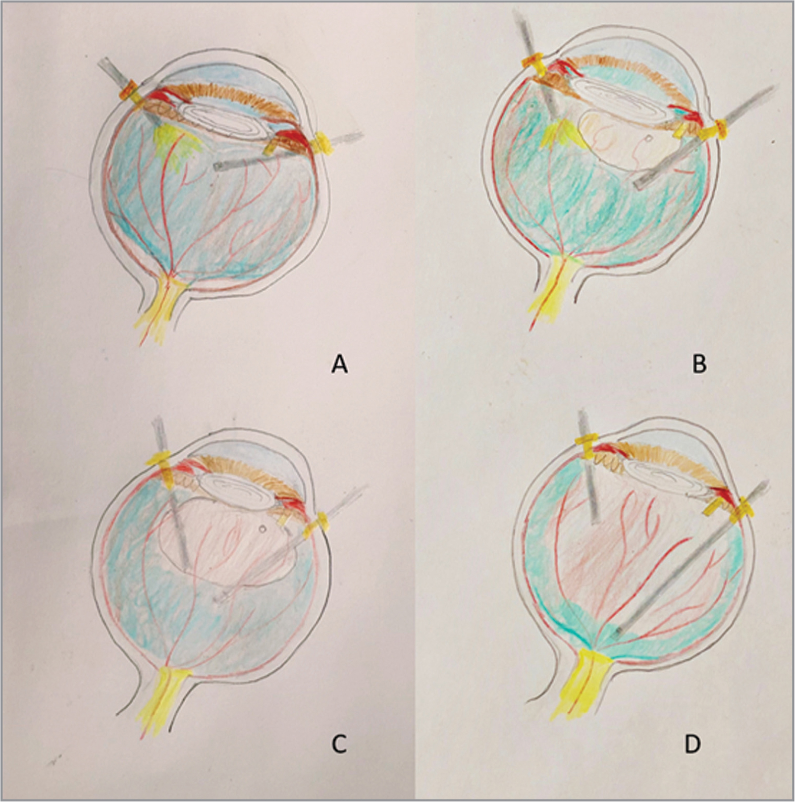 Illustration of vitrectomy biopsy under air in the presence of posterior vitreous detachment (PVD). (A) The biopsy starts with cutting the anterior vitreous body where the PVD is present. (B) The cutter should start to harvest vitreous just behind the air bubble. The air bubble helps to push the vitreous body backward. (C) The cutter cuts the core vitreous body behind the air bubble. In most situations, cutting the middle vitreous body and the inner surface of posterior and peripheral vitreous cortex can meet the need of harvesting 2 mL to 3mL of undiluted vitreous sample. It can help to make the peripheral vitreous cortex and posterior vitreous cortex stable and lessen the traction of vitreous body to the peripheral retina. (D) The peripheral vitreous cortex and posterior virtreous cortex should be left to cut when fluid infusion is turned on.