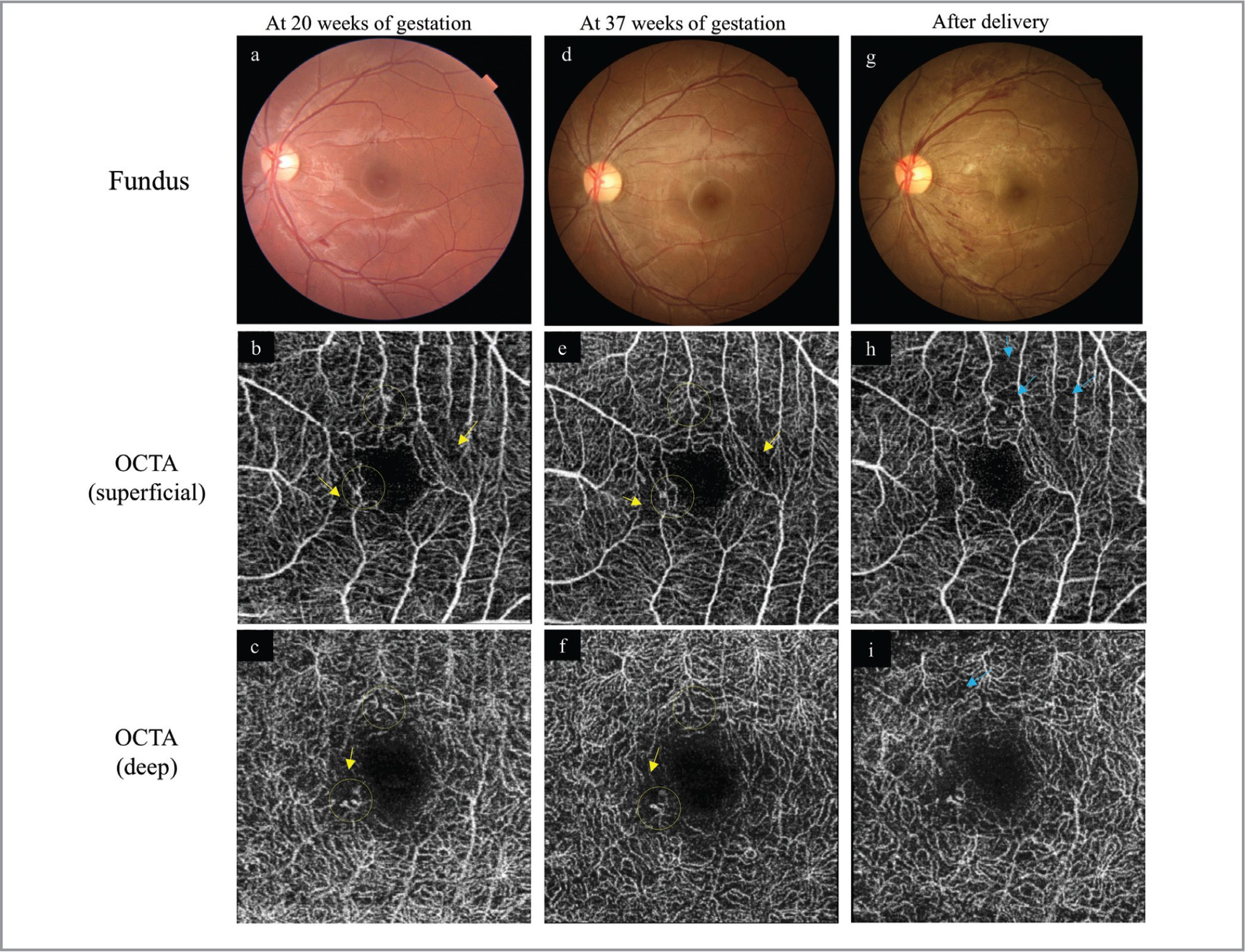 Clinical course of the left eye before and after delivery. Fundus photographs and macular 3 × 3-mm optical coherence tomography angiography (OCTA) images obtained at 20 weeks of gestation (a–c), at 37 weeks of gestation (d–f), and 6 weeks after delivery (g–i). The images in the second row (b, e, h) show the superficial vascular plexus, and the images in the third row (c, f, i) show the deep capillary plexus centered on the fovea. As in the right eye, microaneurysms (yellow circles) and small capillary non-perfusion (yellow arrows) are observed before delivery; there are no apparent differences between 20 weeks (b, c) and 37 weeks of gestation (e, f). However, after delivery, multiple flame-shaped retinal hemorrhages and soft exudates are observed (g), and OCTA shows new areas of flow (blue arrows) in both plexuses (h, i).