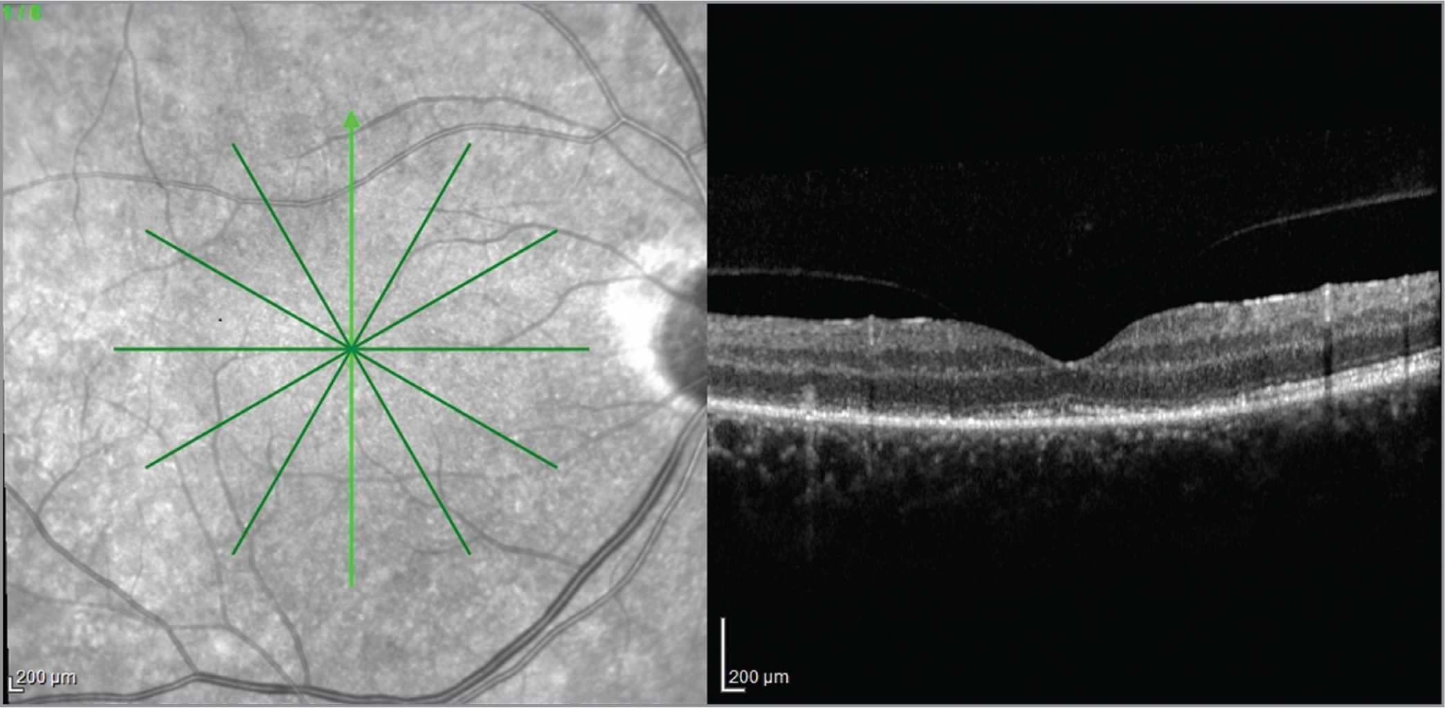 Spectral-domain optical coherence tomography imaging showing the disruption of the inner segment/outer segment junction associated with thickening and granular irregular hyperreflectivity of the retinal pigment epithelium and loss of the external limiting membrane.