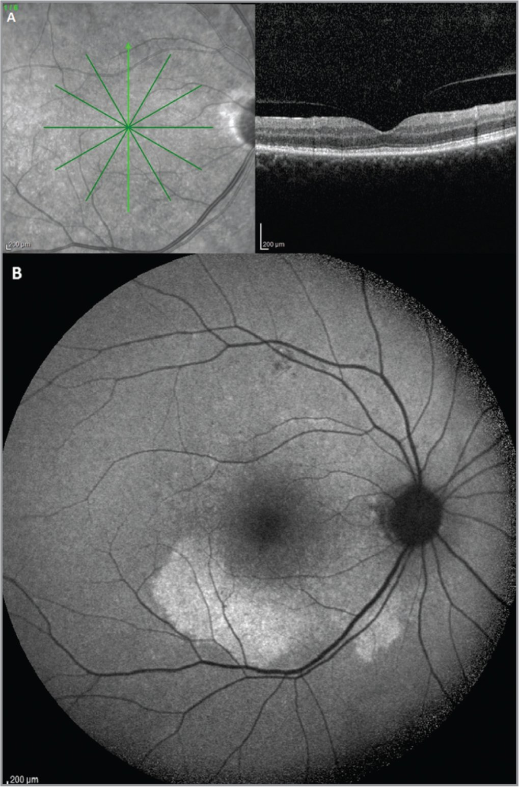 (A, B) At 1 month from presentation, spectral-domain optical coherence tomography scans showed complete restoration of the inner segment/outer segment junction and normalization of the contour of the retinal pigment epithelium layer (A); fundus autofluorescence showed the persistence of hyperautofluorescent areas (B).