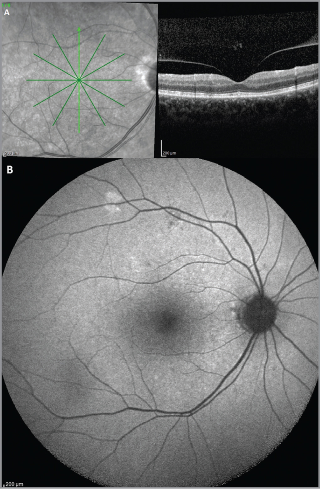 (A, B) At 3 months from presentation, spectral-domain optical coherence tomography images confirmed the complete morphologic restoration of the outer retinal layers (A); moreover, fundus autofluorescence returned to normal appearance (B).