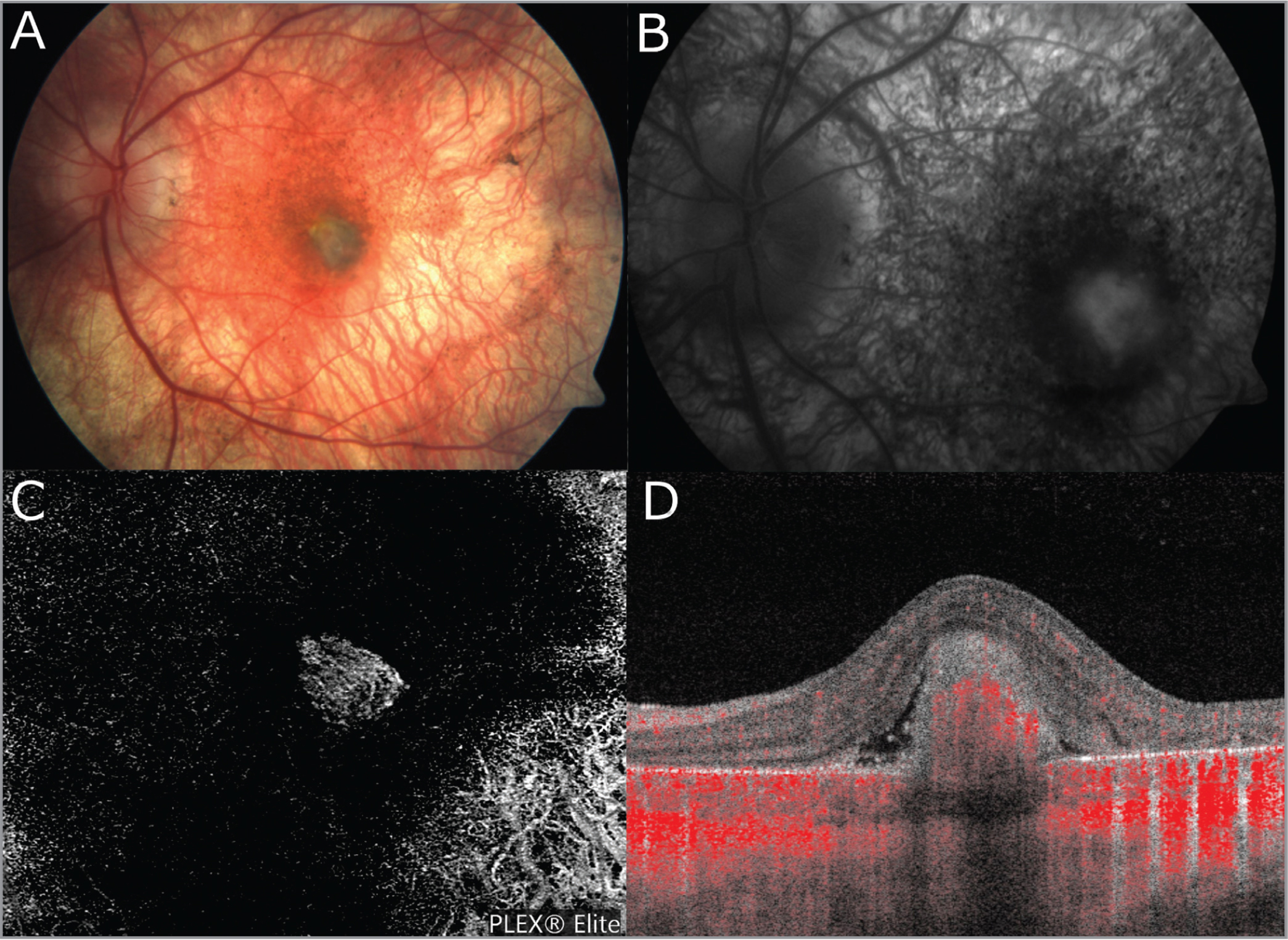 Multimodal imaging of choroidal neovascular membrane (CNVM) in choroideremia. (A) Color fundus photograph of the left eye (OS). Note the subfoveal gray membrane and peripheral choriocapillaris and retinal pigmentary epithelium atrophy. (B) Late-stage fluorescein angiography OS showing leakage corresponding to the location of the subfoveal membrane. (C) En face swept-source optical coherence tomography angiography (SS-OCTA) 6 mm × 6 mm scan OS showing lacy neovascular network corresponding to CNVM. (D) B-scan SS-OCTA 6 mm × 6 mm scan showing CNVM with associated subretinal fluid. Note the positive Doppler flow through the CNVM.