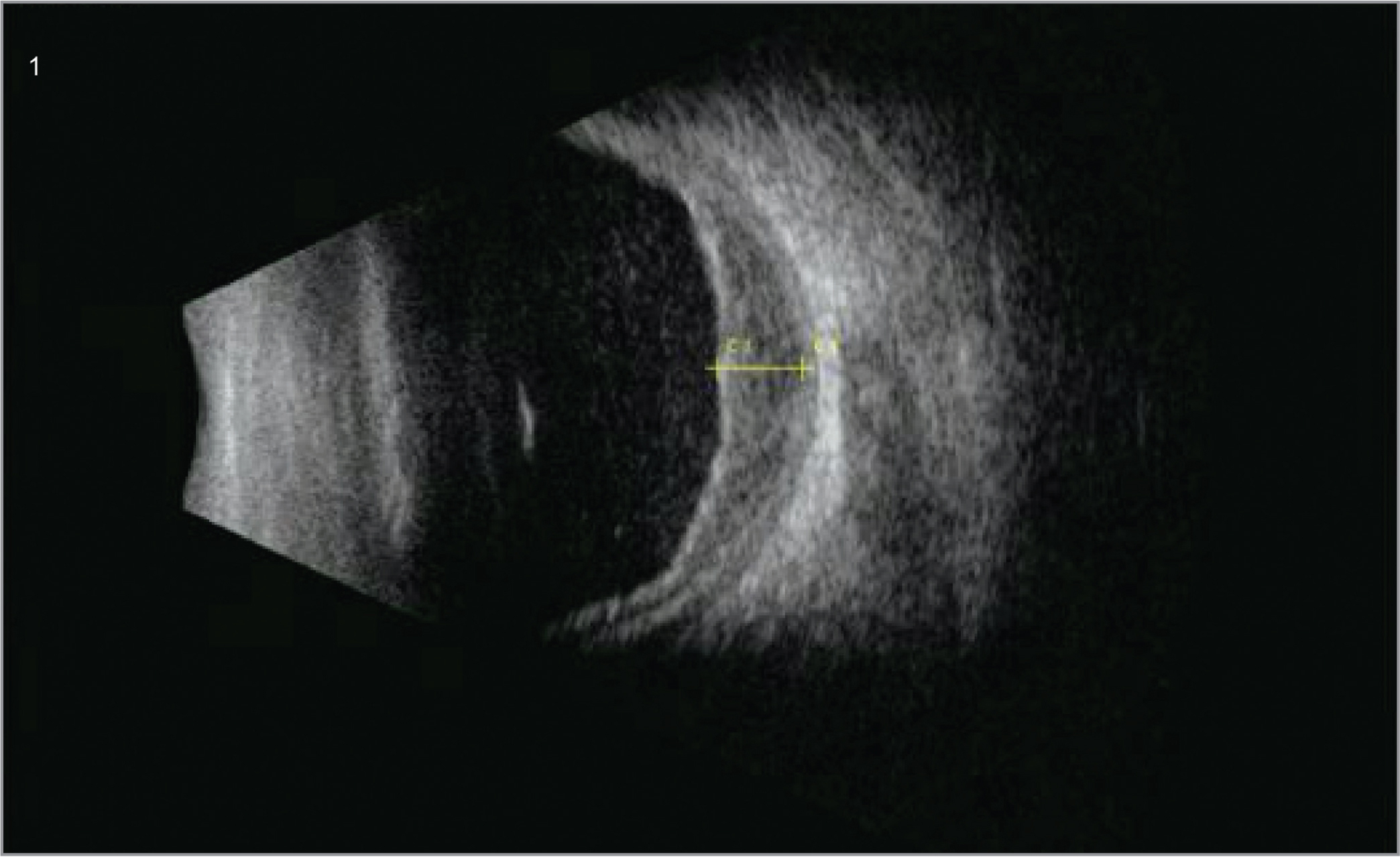 B-scan ultrasonography of patient from Case 1 on postoperative day 1 disclosed non-appositional hemorrhagic choroidal detachments with vitreous hemorrhage (1).