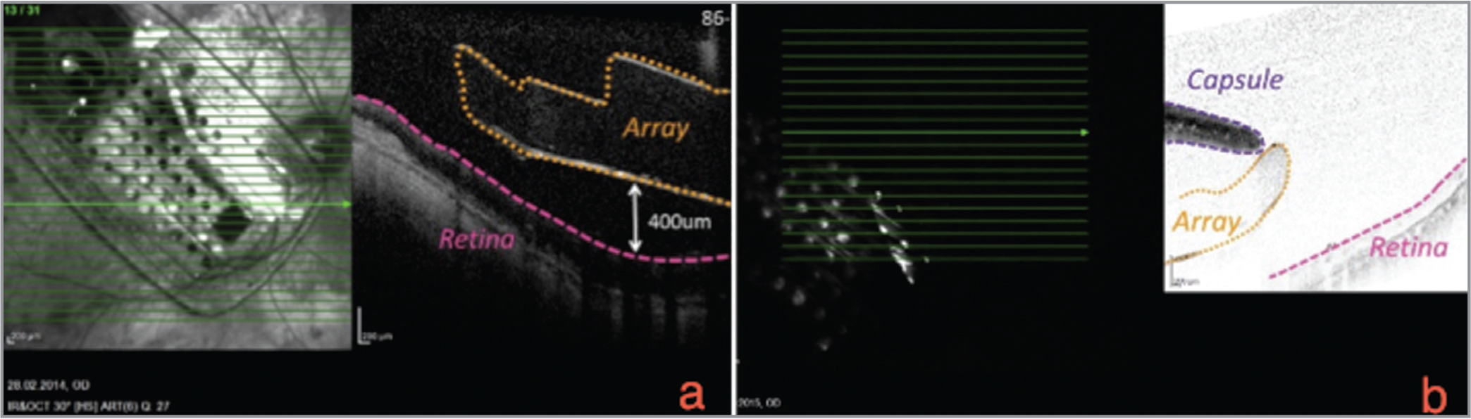 Optical coherence tomography (OCT). (a) Shows the first chip; (b) the new chip. Because of a vascularized fibrotic capsule above the new chip, OCT quality is limited.