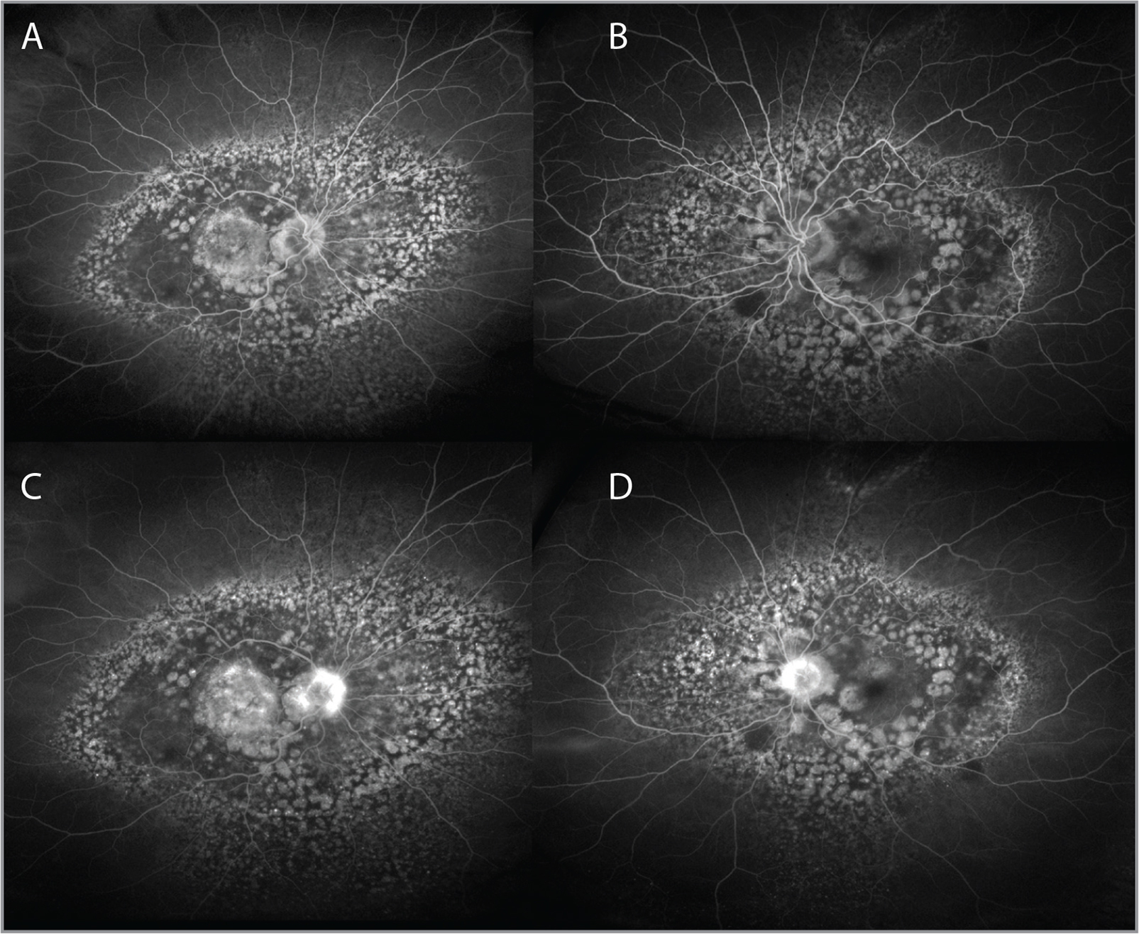 Early and late-phase fluorescein angiography of the right eye (A, C) and the left eye (B, D).