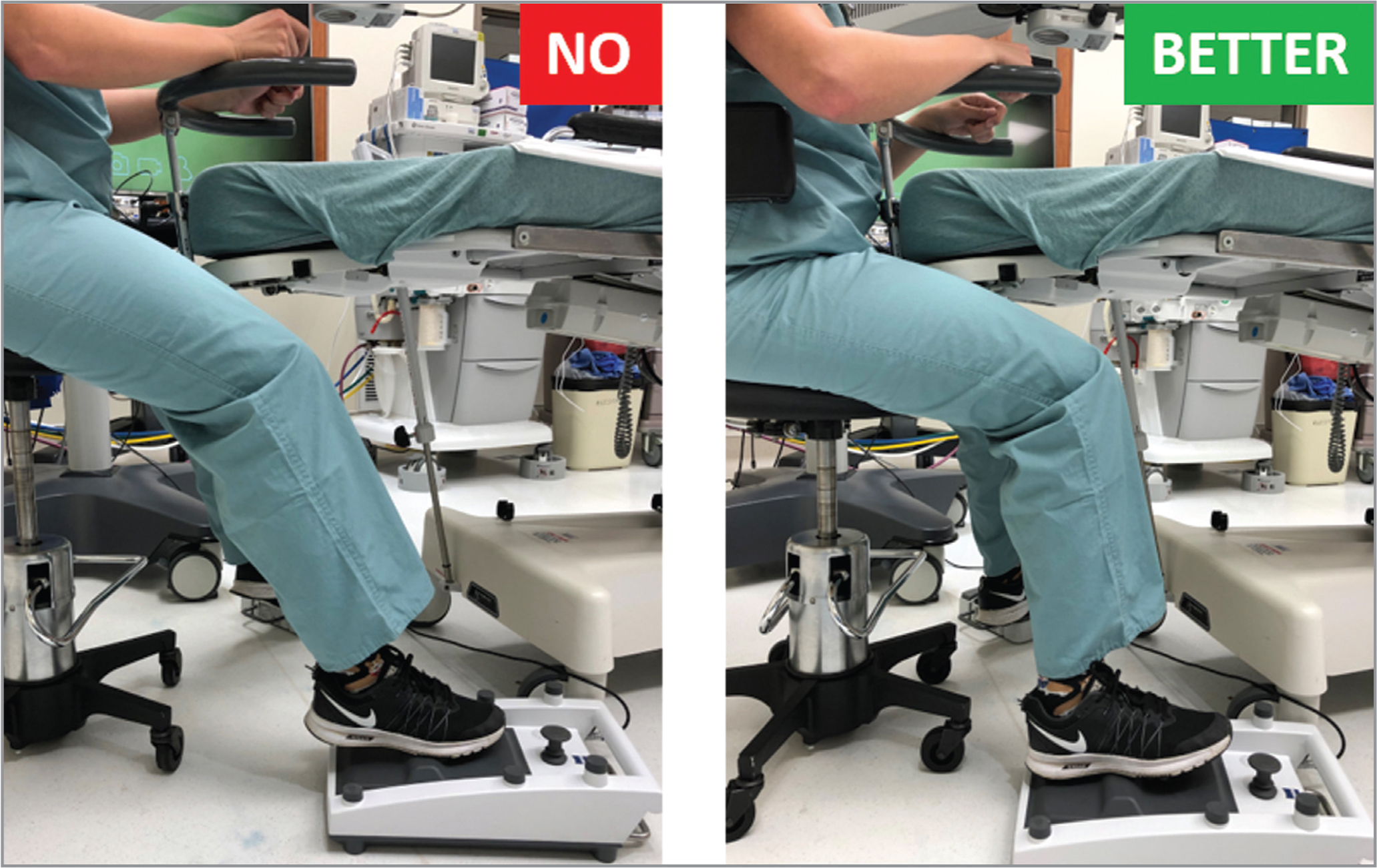 Left: The surgeon's chair is too high and the pedals too far away, straining the back, hips, legs, and feet. Right: The surgeon's hips are squared with knees bent at approximately 90° with feet securely planted on the pedals.
