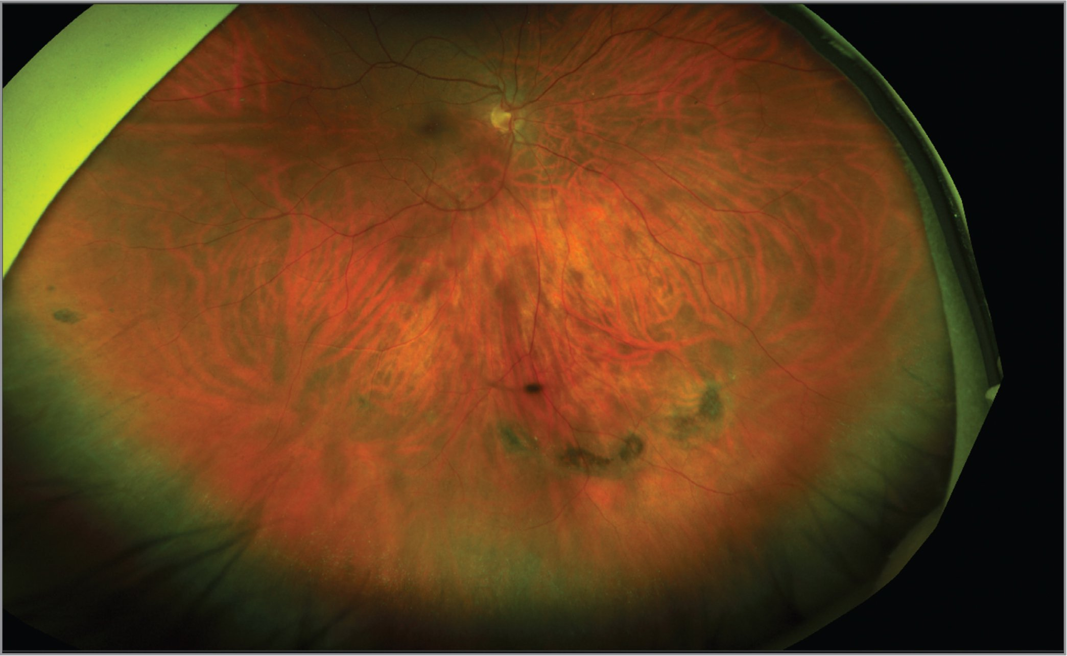 Pseudocolor image from the right eye of a patient affected by lattice degeneration located in the inferior peripheral retina.