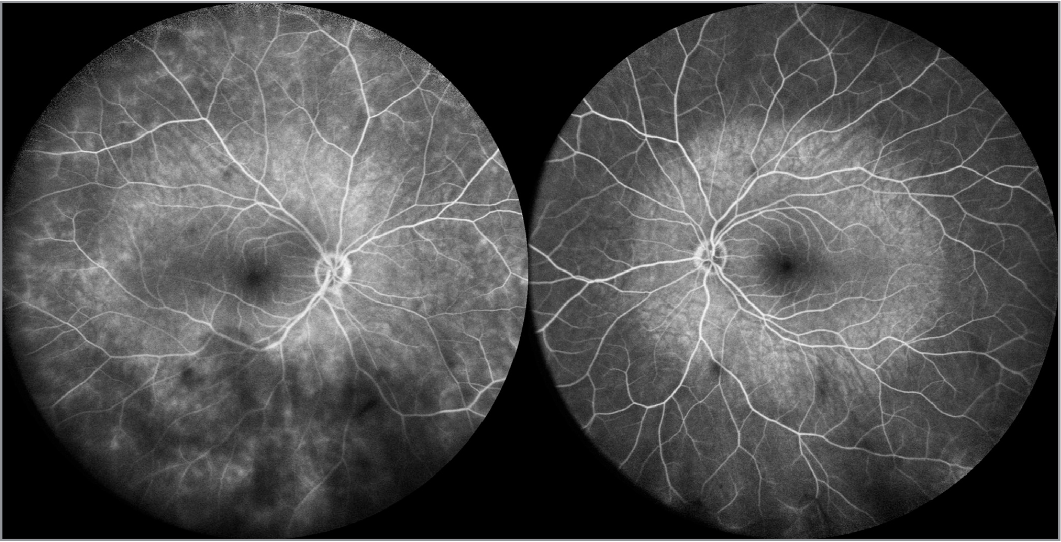 Widefield recirculation phase fluorescein angiography at 102° captured with scanning laser ophthalmoscopy demonstrates round areas of central choroidal hyperfluorescence in right (left panel) and left (right panel) eyes. This circular, well-circumscribed pattern is due to photobleaching from intense, short-wavelength light emission during earlier acquisition with the 55° lens, contrasted with adjacent, unaffected peripheral retina.