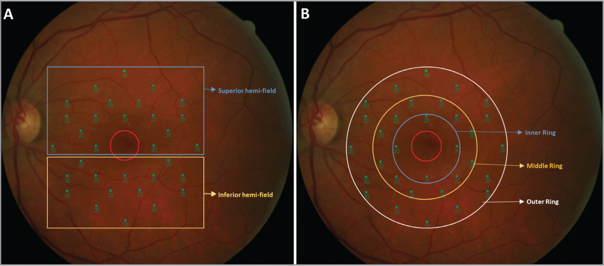 Illustration of hemifield (A) and ring-wise (B) retinal sensitivity measurements.