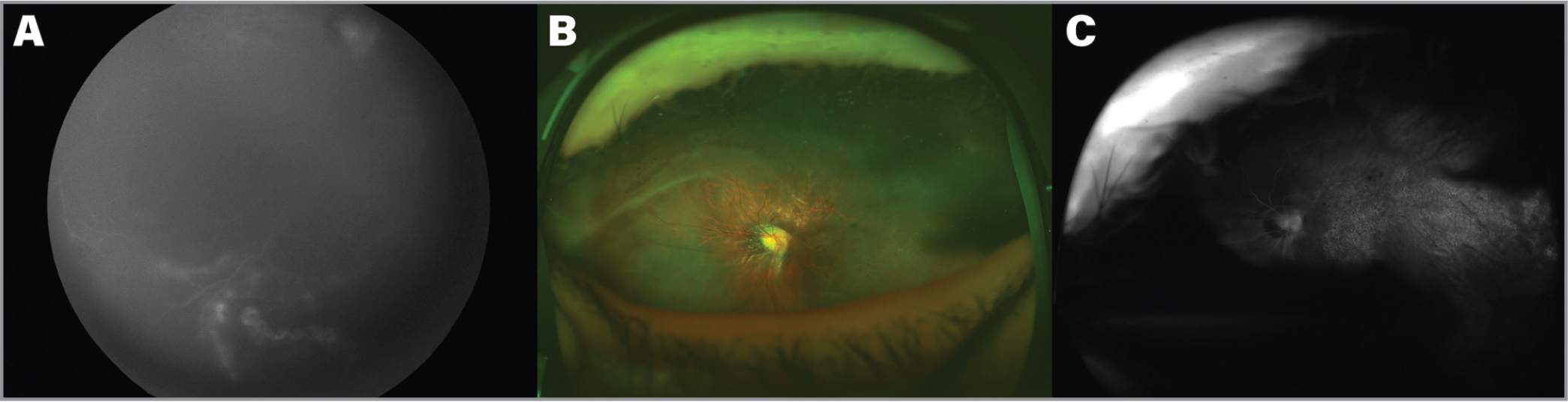 Retinal features of the right eye in a 14-year-old male (Patient 3) with Pierson syndrome. (A) Retcam fluorescein angiography (FA) showing mid-peripheral fluorescein leakage superonasally for which laser photocoagulation was performed. (B) Fundus photograph 2 years after laser treatment showing a tessellated fundus, typical optic disc changes with parapapillary atrophy, avascular retina, aberrant course of temporal arcades, and straightening of nasal retinal vessels. Note the laser photocoagulation marks at the superonasal retina. (C) FA of the right eye showing no active retinal neovascularization.