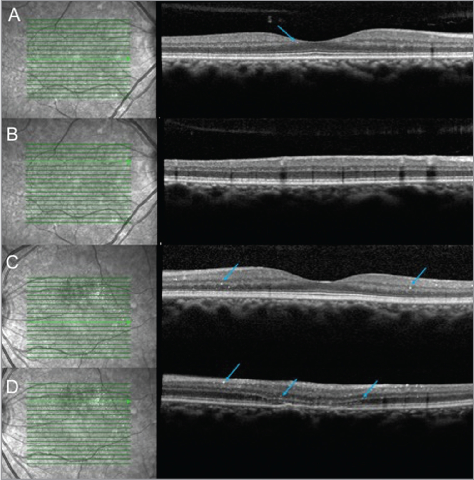 Optical coherence tomography at the time of presentation. The right eye (A, B) and left eye (C, D) at different areas of the macula demonstrated pinpoint hyperreflective material throughout the various layers of the retina representing the canthaxanthin crystals (blue arrows). In addition, (D) also had outer retinal subsidence and atrophy of the left superior macula.