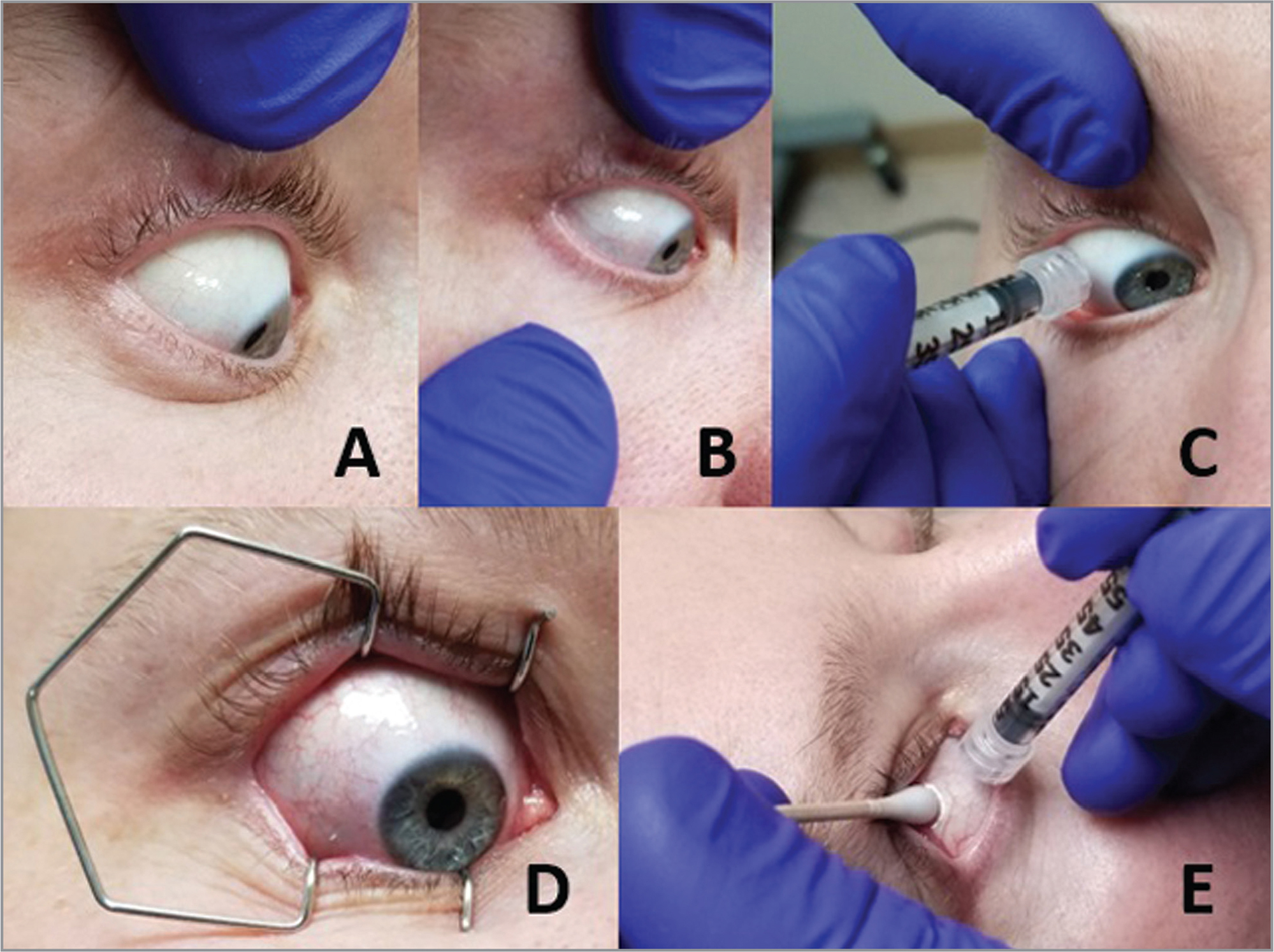 Methods for eyelid retraction during intravitreal injections include use of unimanual (A) or bimanual eyelid retraction (B), lid splinting (C), speculum (D), or cotton-tipped applicator eyelid retraction (E) techniques.