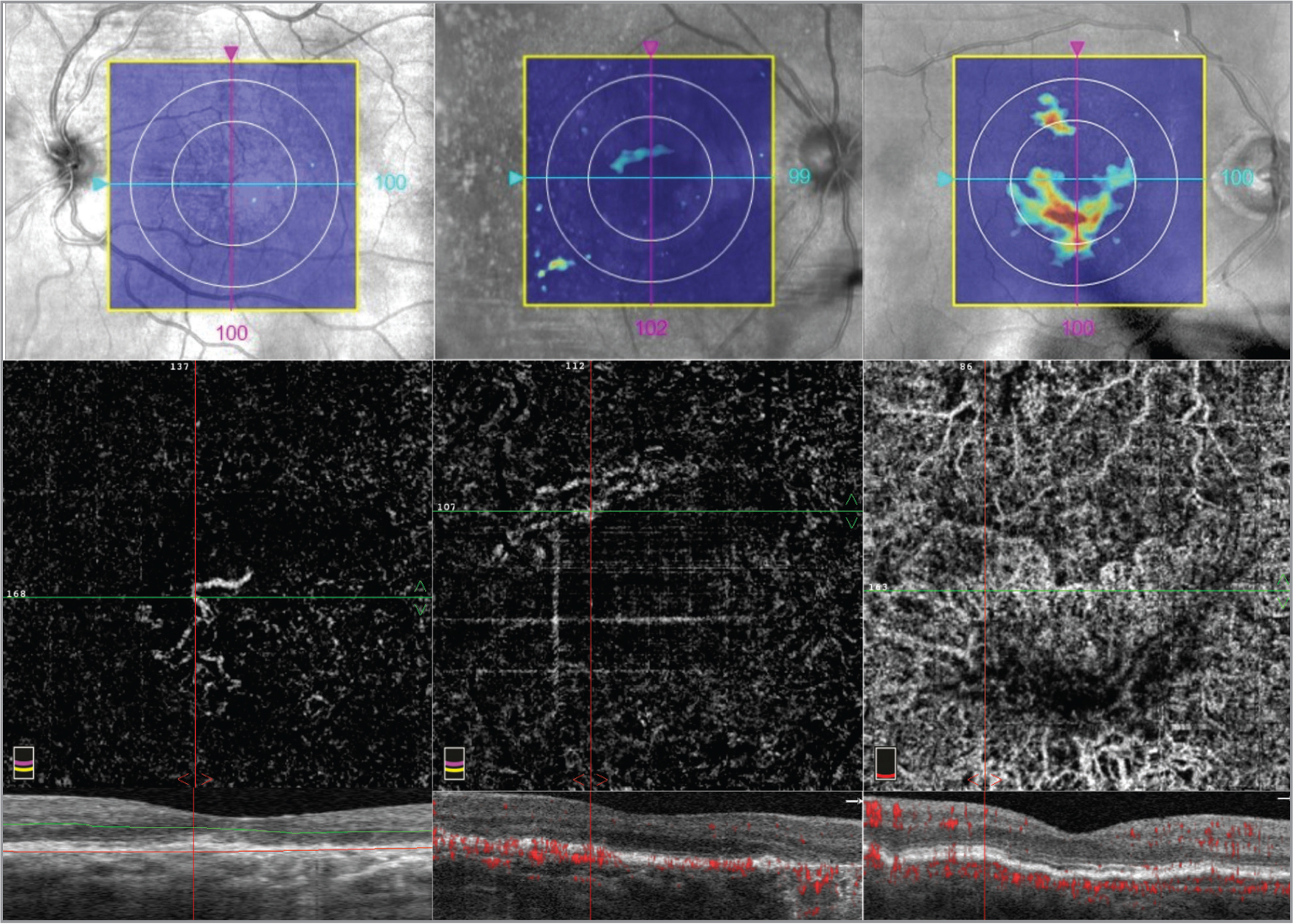 Subclinical choroidal neovascularization (CNV) detected by optical coherence tomography angiography (OCTA) in patients with early and intermediate age-related macular degeneration (AMD). All OCTA images were manually reviewed with a lower segmentation border at Bruch's membrane. (Left column) Case example categorized as a low drusen burden (no calculable drusen area or volume) with extrafoveal RPE atrophy, measured by a 5-mm diameter circle retinal pigment epithelium (RPE) elevation map (top). OCTA reveals neovascular lesion in the outer retina (middle) that corresponds to a sub-RPE deposit at the margin of an RPE atrophy on the horizontal cross-sectional optical coherence tomography (OCT) (bottom). (Middle column) Case example categorized as an intermediate drusen burden (drusen area = 0.5 mm2, volume = 0.01 mm3) with a well-demarcated area of RPE elevation on the map (top). OCTA reveals a subclinical CNV lesion (middle) that corresponds to an area of vascularized sub-RPE material mimicking the appearance of drusen on horizontal cross-sectional OCT (bottom). An extrafoveal RPE atrophy is also noted. (Right column) Case example categorized as a high drusen burden (drusen area = 4.4 mm2, volume = 0.21 mm3), as evidenced by RPE elevation map (top). OCTA scan reveals a complex neovascular lesion (middle) corresponding to vascularized RPE elevation on horizontal cross-sectional OCT (bottom).