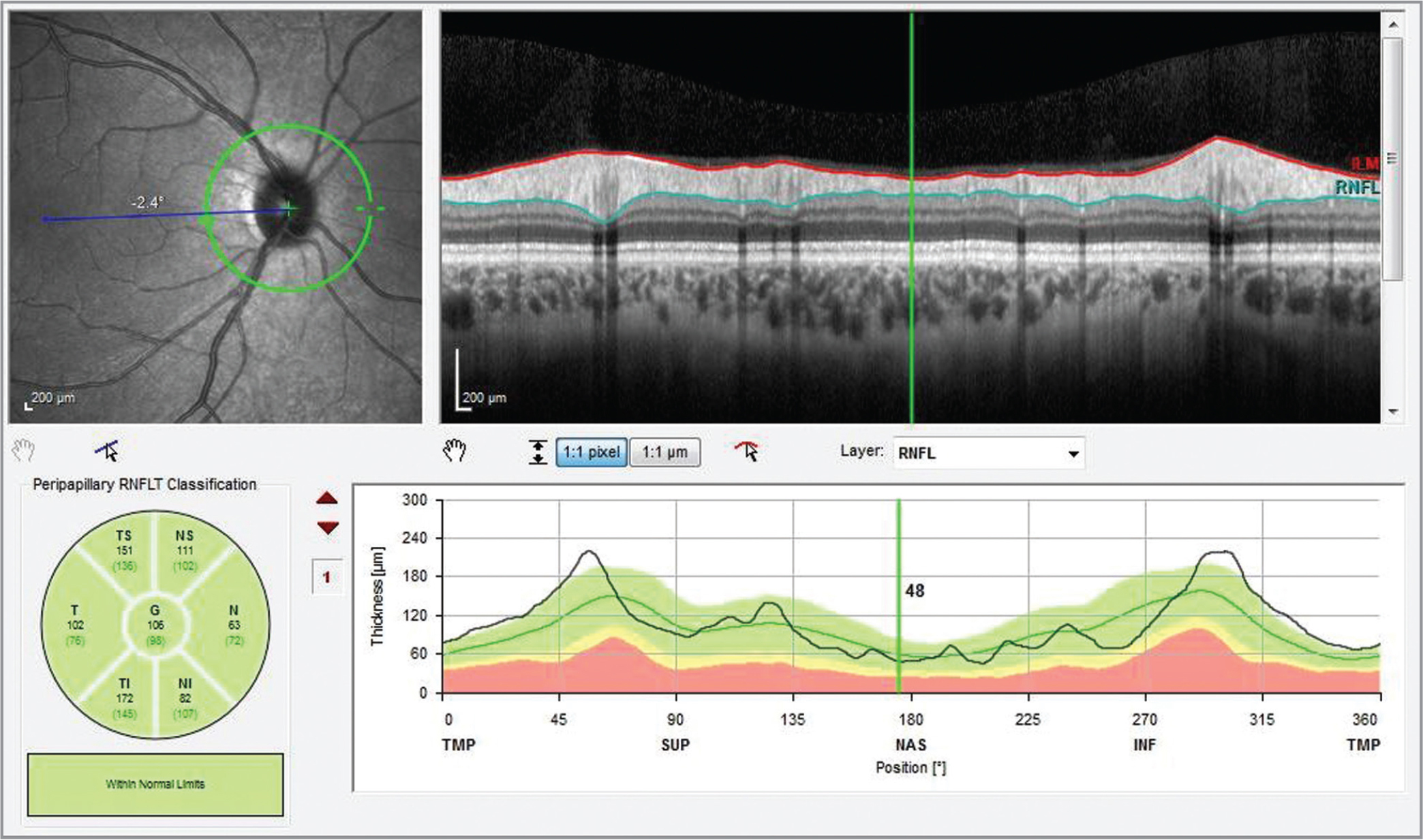 The retinal nerve fiber layer thickness screen.