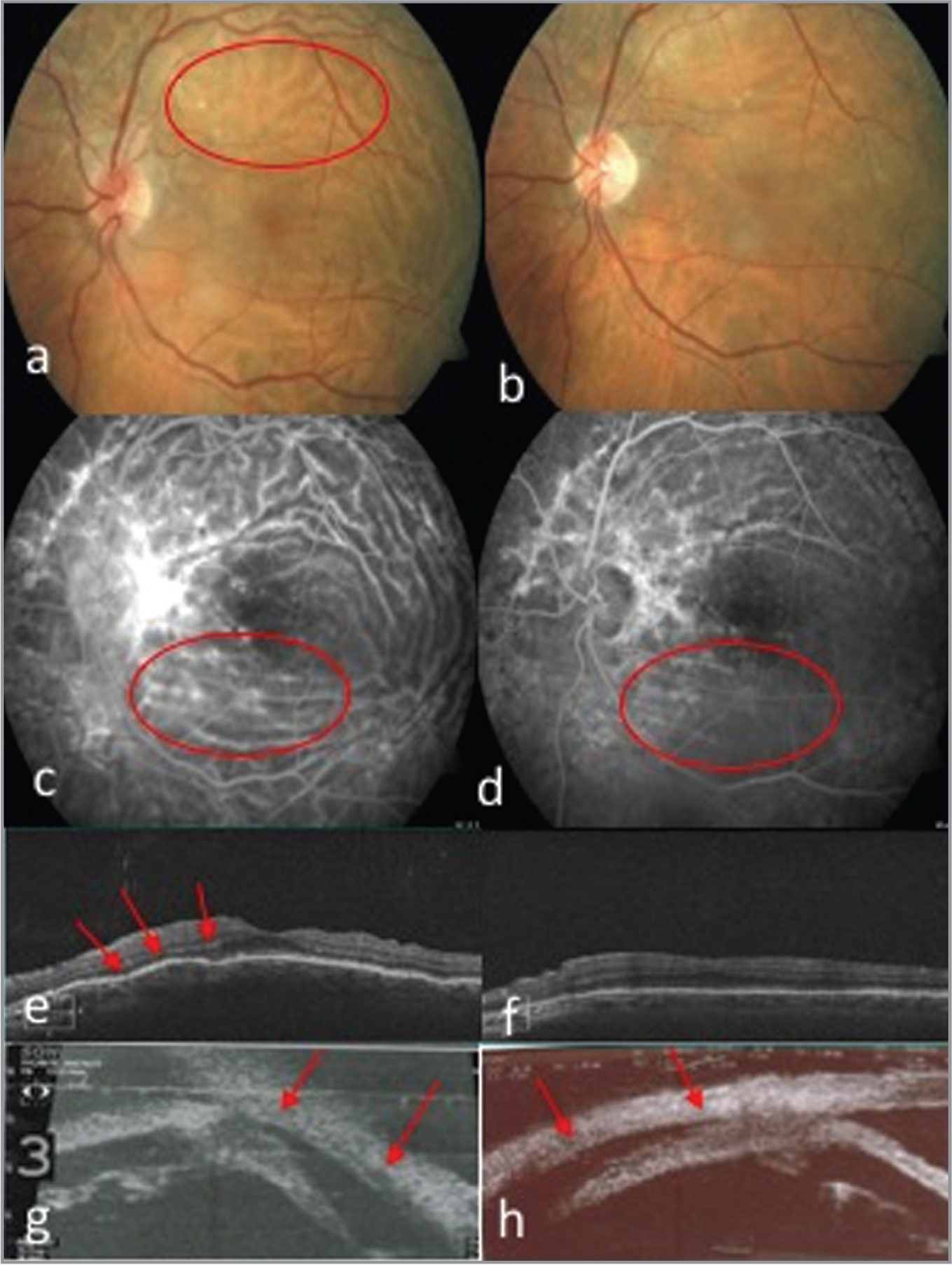 Patient No. 1. Images a, c, e, and g are preoperative; images b, d, f, and h are postoperative. Color retinography: (a) hypotonic maculopathy with evident macular folds, (b) without them. (c, d) Fluorescein angiography; both pictures with hyperfluorescent lines in (c) because of hypotonic maculopathy and in (b) still visible in a lesser degree due to the residual atrophy left by the macular fold. (e, f) Spectral-domain optical coherence tomography; (e) with subtle folds, (f) without them. (g, h) Ultrabiomicroscopy: a representative images of ciliochoroidal detachment.