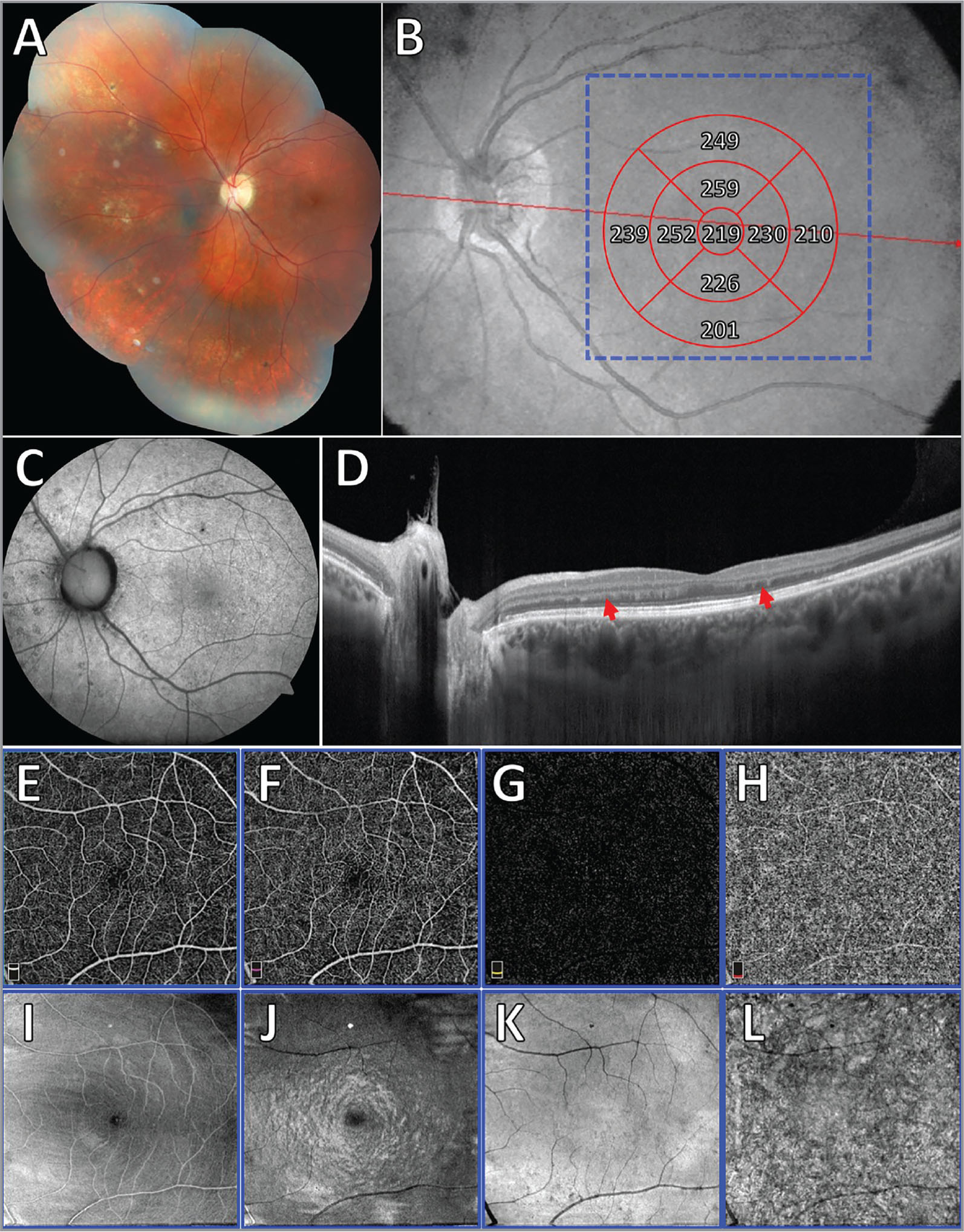 Case 4. Multimodal imaging of a 21-year-old woman with late-stage diffuse unilateral subacute neuroretinitis in the left eye. (A) Color fundus photograph shows diffuse retinal pigment epithelium atrophy, attenuated retinal vessels, and optic disc pallor. (B) Reference fundus image demonstrates normal values on the macular thickness map. (C) Fundus autofluorescence reveals diffuse hypoautofluorescent spots in the fundus. (D) Cross-sectional optical coherence tomography (OCT) represented by the red line in image B shows retinal atrophy along with an irregular outer plexiform layer (red arrowheads). (E, F, G, H) OCT angiography (represented by the blue square in image B) of the superficial capillary plexus (E), deep capillary plexus (F), outer retina (G), and choriocapillaris (H) shows absence of vascular perfusion abnormalities in the macular area. (I, J, K, L) En face OCT correspondent to the segmentation performed, respectively, in images E, F, G, and H, reveals an abnormal pattern of imaging probably related to the outer plexiform layer irregularities seen in image D.