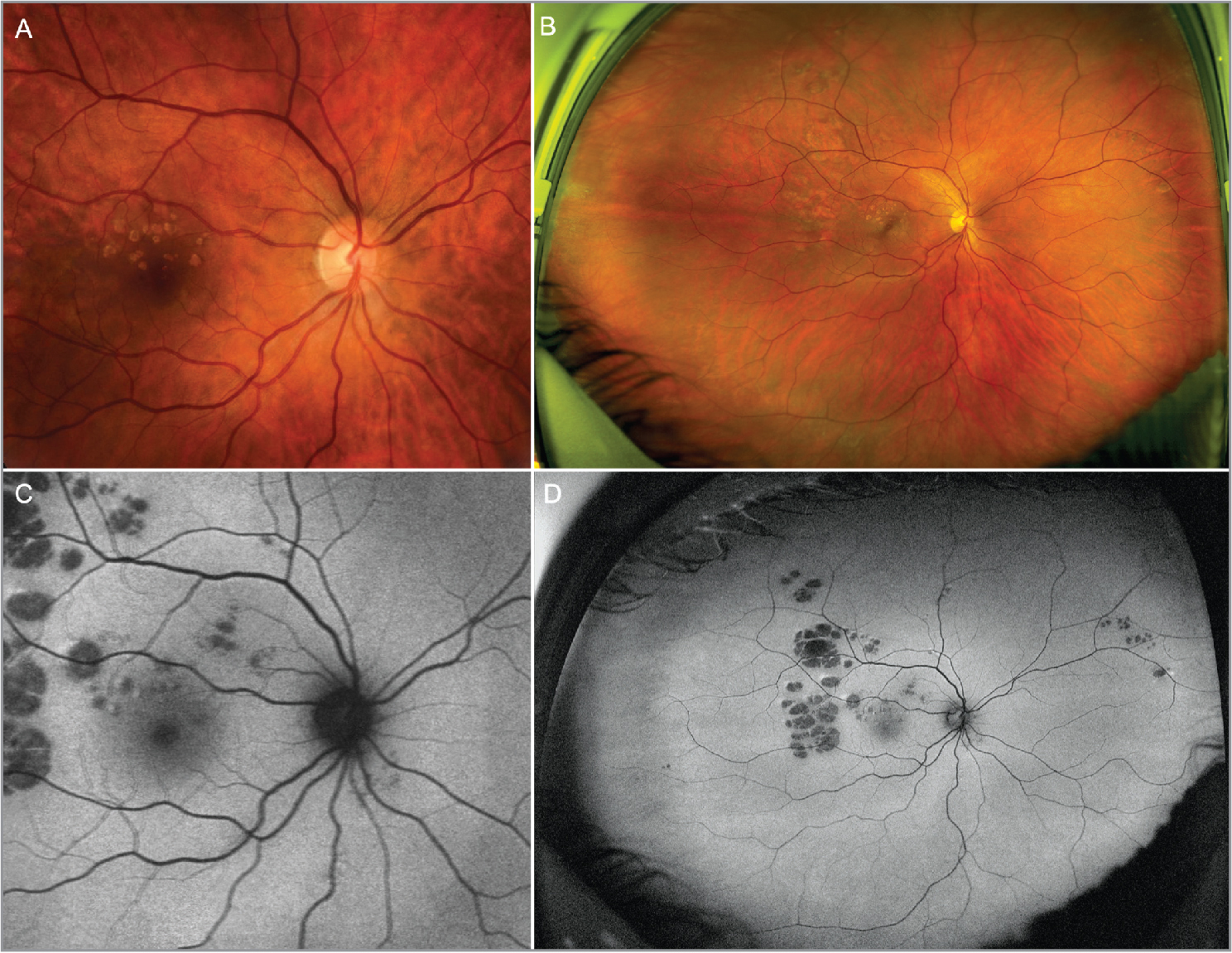 Color fundus photography and fundus autofluorescence (FAF) in congenital grouped albinotic spots (CGAS) over the course of 8 years (2011 to 2019). (A) Color fundus photography (CFP) from baseline where multiple grouped albinotic spots are seen in the macular area. (B) Ultra-widefield (UW) CFP from the patient's last visit shows that the lesions extend beyond the macular area, especially affecting the superotemporal midperiphery. (C) Blue-light FAF from baseline shows hypoautofluorescent spots that resemble animal footprints. The spots seen in FAF are better defined and far outnumber those seen on CFP. This is particularly clear in UW-FAF (D). No changes in the number, location or size of the hypoautofluorescent spots can be perceived, despite an 8-year time frame between acquisitions.