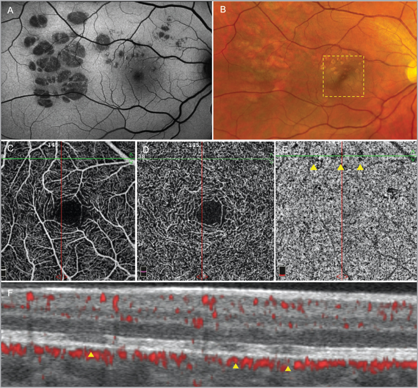 Multimodal imaging in congenital grouped albinotic spots. (A) Fundus autofluorescence (FAF) montage of the patient's right eye showing multiple hypoautofluorescent spots grouped in an animal footprint pattern. (B) Color fundus photography of the same segment imaged in (A) shows that the temporal albinotic spots are ill-defined when compared to FAF. The dotted yellow square represents the 3 mm × 3 mm area scanned by optical coherence tomography (OCTA). Both the superficial (C) and deep (D) capillary plexuses demonstrate normal vessel density. In the choriocapillaris slab (E), a shadow effect over the choriocapillaris in the location of the albinotic spots (yellow arrow heads) is observed (yellow arrow heads). (F) Horizontal spectral-domain optical coherence tomography shows atrophy of the outer retinal layers, with subjacent integrity of the retinal pigment epithelium layer (yellow arrow heads). The yellow arrow heads in F match the focal areas of shadowed choriocapillaris in E. The mosaic photographs of FAF were created from multiple individual photographs using the i2k Retina Pro (DualAlign, New York, NY).