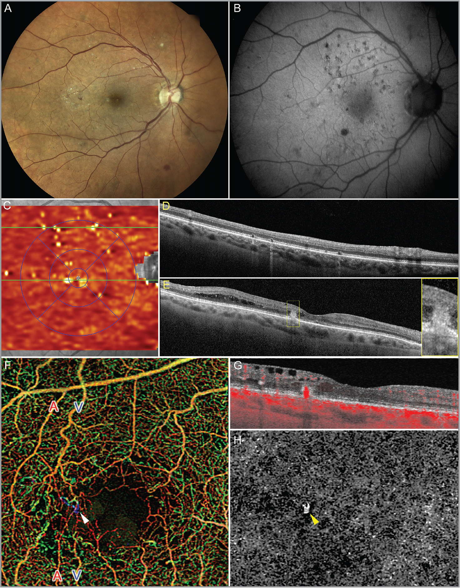 "Multimodal imaging of the right eye. (A) Confocal true color fundus photograph shows findings of nonproliferative diabetic retinopathy including scattered intraretinal hemorrhages and lipid exudates temporal to the fovea. (B) Fundus autofluorescence and (C) en face structural slab from the retinal pigment epithelium (RPE) to Bruch's membrane obtained using the in-built segmentation software of the Spectralis HRA+OCT aligned to the near-infrared reflectance image both show evidence of prior focal/grid laser. (D, E) Optical coherence tomography (OCT) B-scans corresponding to the green lines in C. (D) A representative OCT B-scan from the superior macula shows discontinuity of ellipsoid and interdigitation zones at the site of prior laser. (E) Central OCT B-scan shows temporal retinal thickening and a hyperreflective intraretinal lesion extending from the outer plexiform layer through a disrupted RPE/Bruch's membrane complex. (F) A 3 mm × 3 mm color retina depth-encoded OCT angiography (OCTA) image with two veins labeled as ""V"" and two arteries labeled as ""A."" The vascular complex is marked with a white arrowhead. The presence of vascular flow is seen as red overlay on a corresponding cross-sectional OCT B-scan (G), and the default outer retina to choriocapillaris (ORCC) slab (H) marked with a yellow arrowhead."