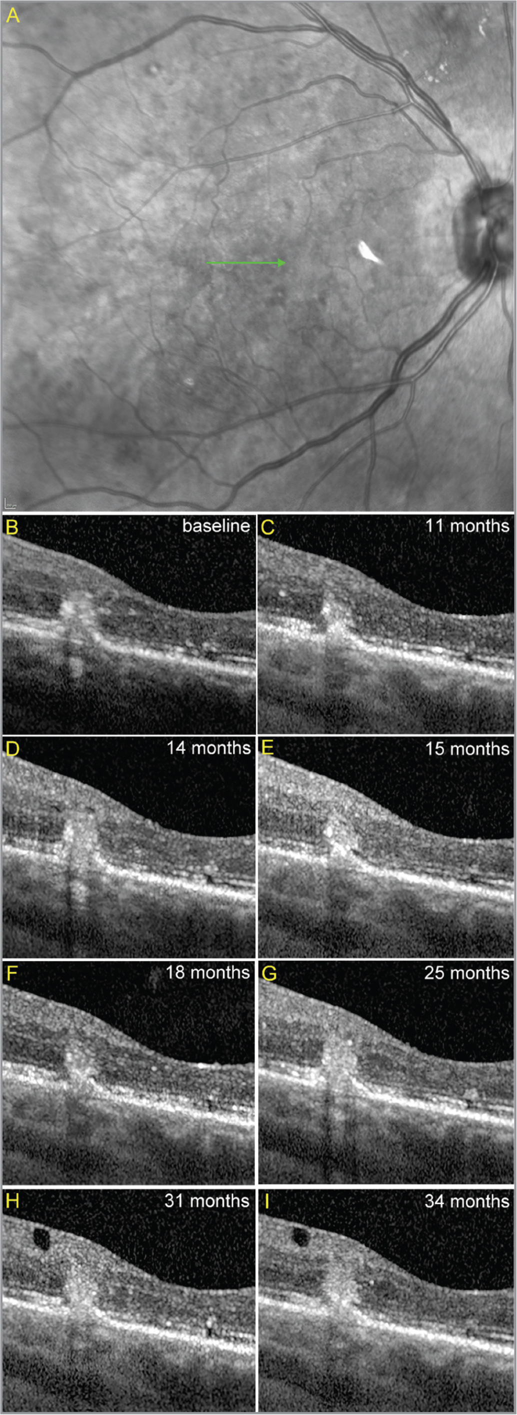 Follow-up images show the nonprogressive nature of the vascular complex. (B to K) Eye-tracked spectral-domain optical coherence tomography images at different time points taken through the green line in the near-infrared reflectance image (A).