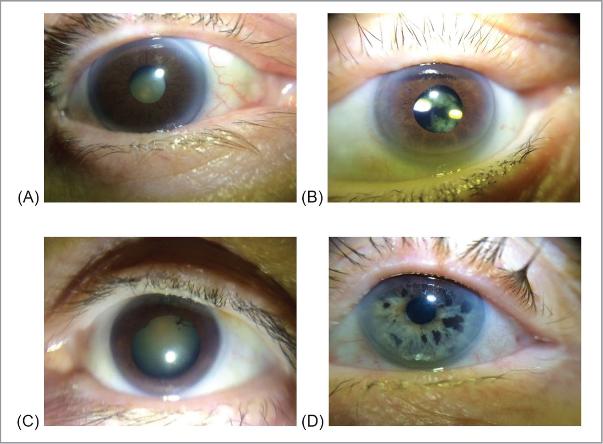 Example anterior segment photographs taken with the Paxos Scope showing (A) cataract, (B) pseudophakia with posterior capsular opacification, (C) cataract with posterior synechiae, and (D) suspicious iris nevi.