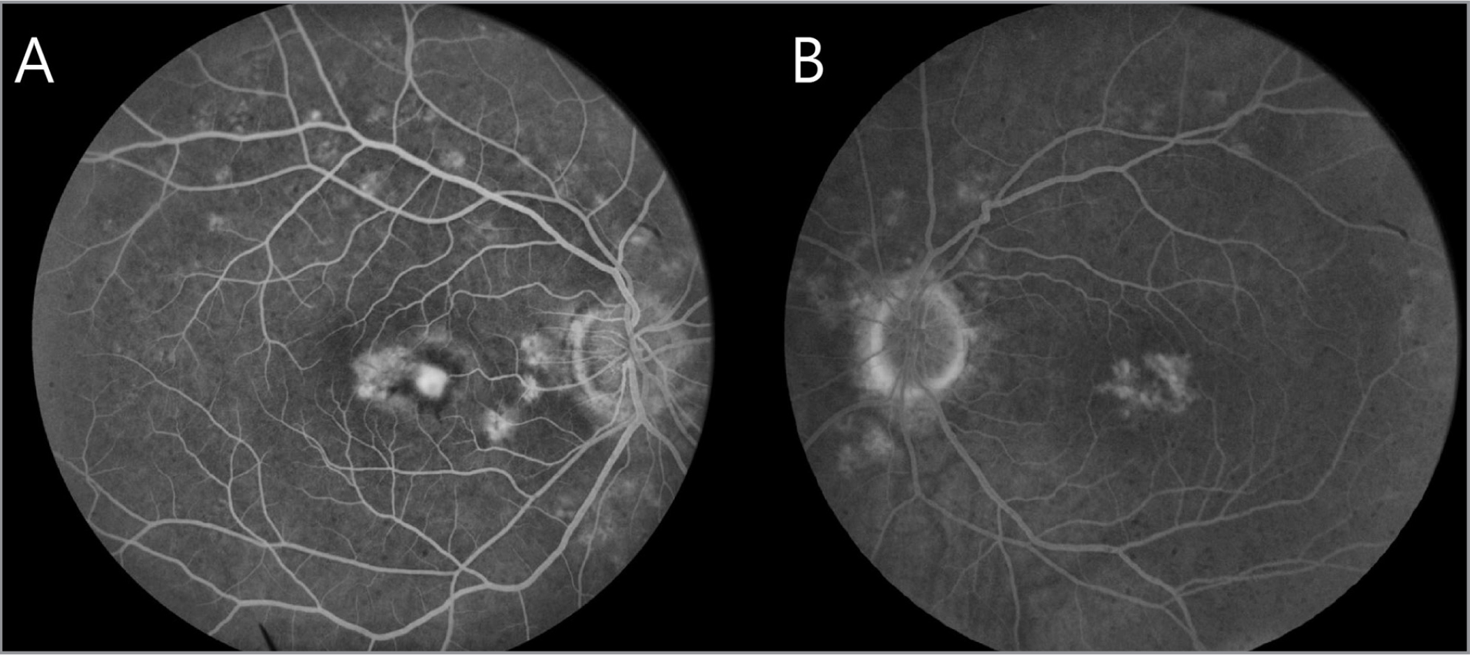 Right (A) and left (B) fluorescein angiography of Patient A demonstrating bilateral hyperfluorescent flecks and leakage from a choroidal neovascularization in the right eye in 2005 (A). (B) Window defect in the left eye.