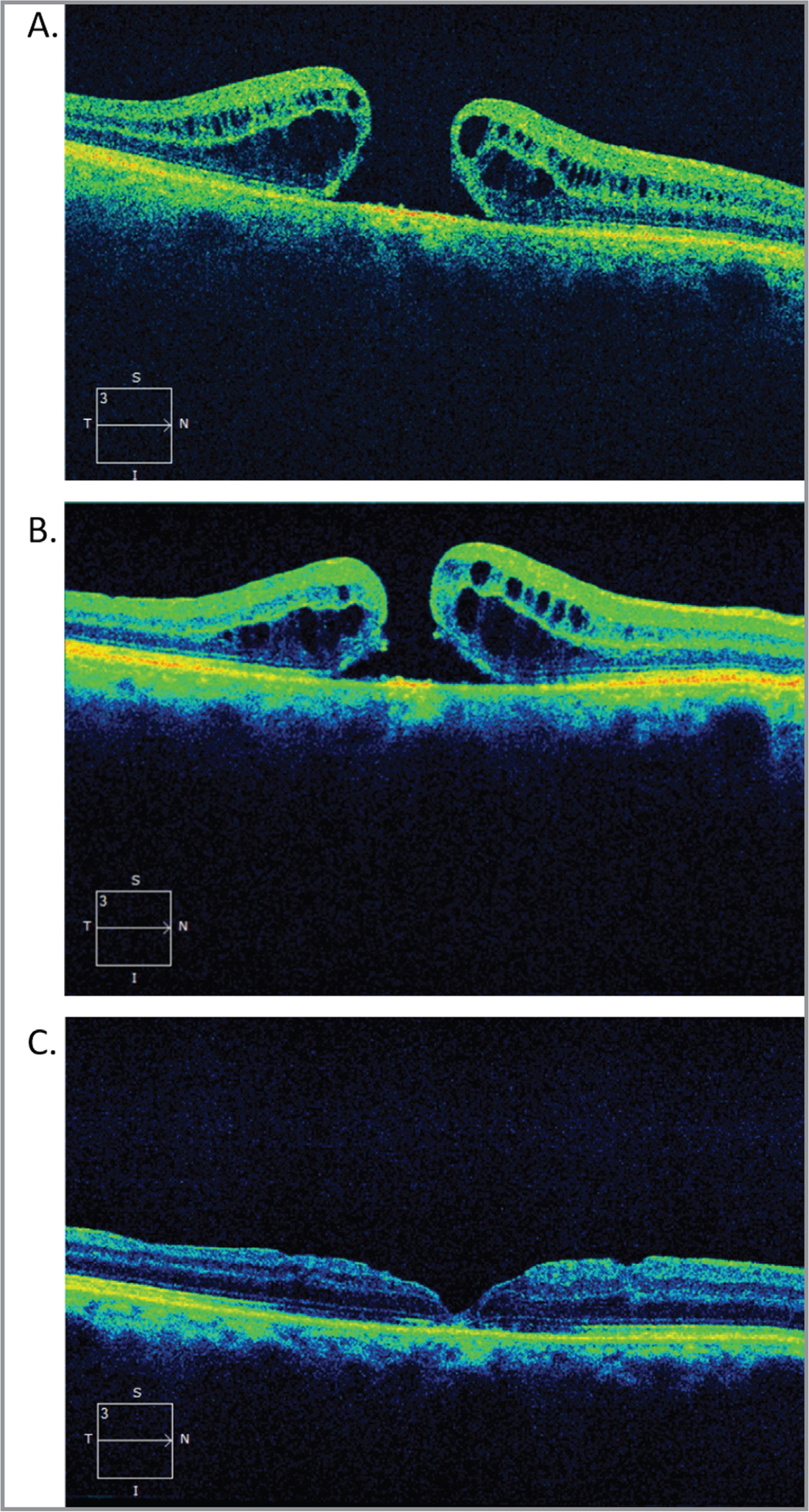Broader internal limiting membrane (ILM) peeling for a refractory macular hole (MH). A 76-year-old man with recent MH and best-corrected visual acuity (BCVA) of 20/200 (A) underwent vitrectomy, ILM peeling, and gas tamponade with incomplete closure of his MH after 1 month (B) and mild improvement of BCVA to 20/100. A subsequent broader ILM peel was performed and repeat gas tamponade with resulting closure of the MH (C) 1 month after surgery and improvement in BCVA to 20/30.