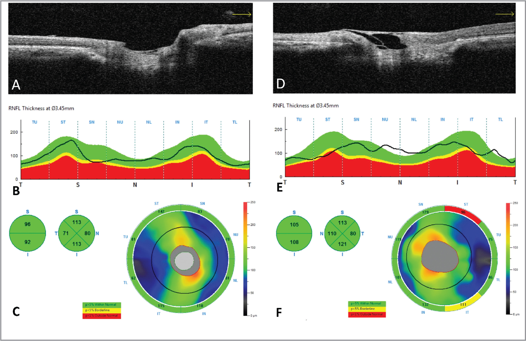 Disc optical coherence tomography (OCT). Horizontal cross-section of the optic nerve head image (A, D), temporal-superior-nasal-inferior-temporal curve of the peripapillary retinal nerve fiber layer (RNFL) thickness profile along the 3.45 mm diameter circle (B, E), RNFL thickness measurement summarized in two quadrants (superior and inferior) and four sectors (superior, nasal, inferior, and temporal), and RNFL thickness map (C, F) provided by the spectral-domain OCT. The left eye with situs inversus of the optic disc (D–F) showed thicker RNFL in the nasal quadrant and smaller cup-to-disc ratio when compared to the right eye (A–C) without situs inversus of the optic disc.