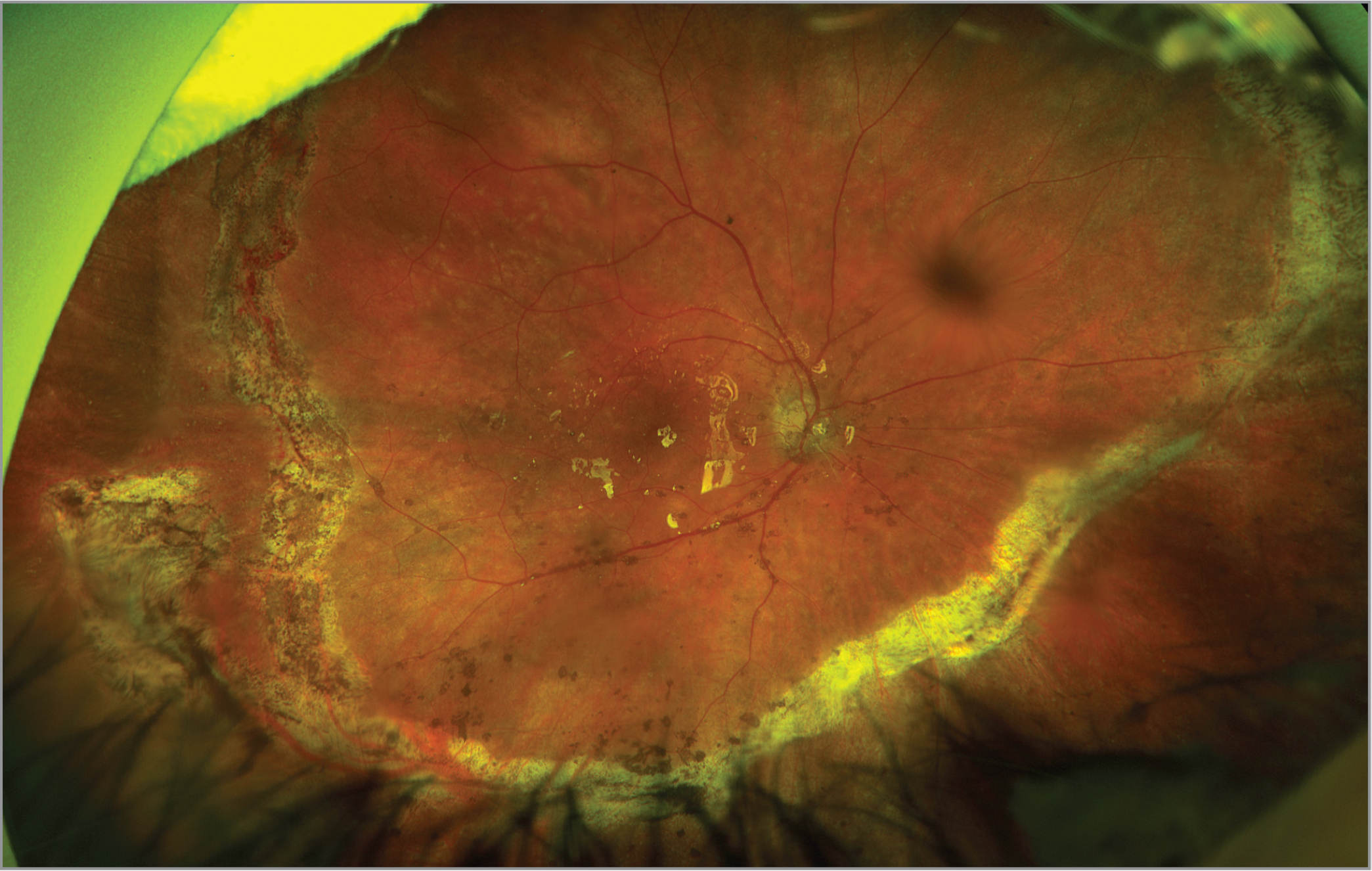 Widefield fundus photo following extension of the retinectomy temporally. The preretinal pigment deposits have improved following surgery.