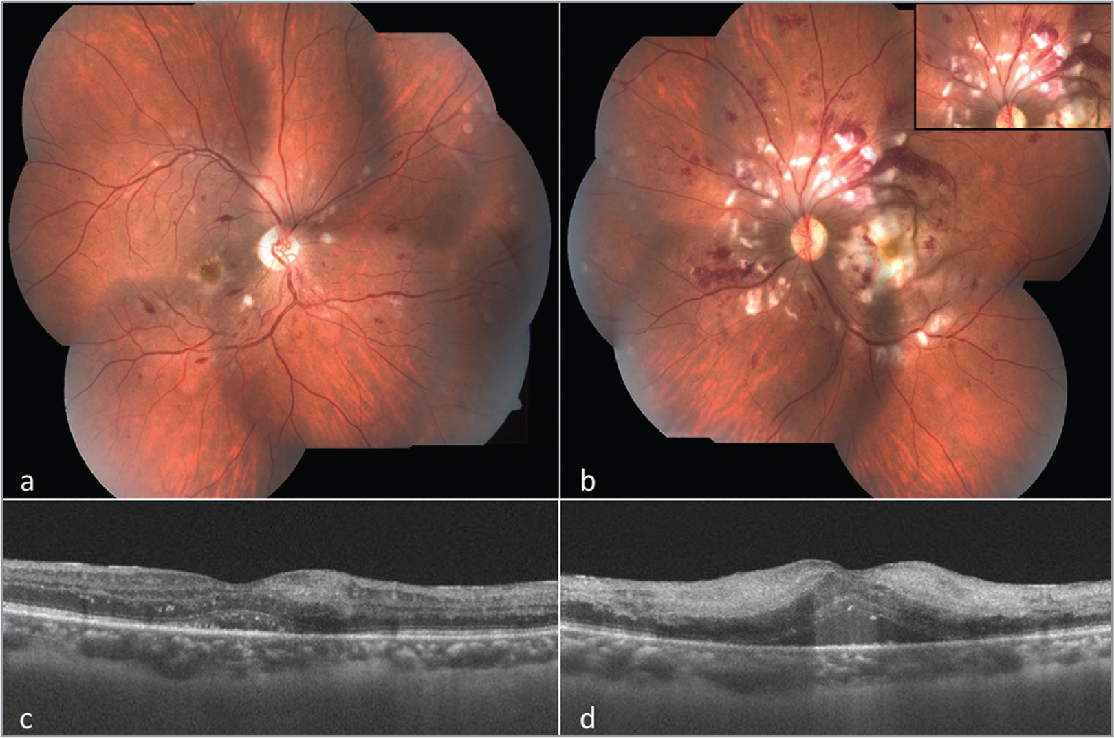 Color fundus photo of right eye (a) shows multiple intraretinal (dot-blot, flame shaped) hemorrhages, cotton-wool spots, and areas of retinal whitening predominantly involving the posterior pole in both eyes. In addition, left eye (b) also shows severe retinal whitening in the macular area. On close look, segmentation of blood columns (cattle trucking of veins) in the superior arcade vessels (inset) can be noted. Optical coherence tomography (horizontal line scan) of both eyes (c, d) shows hyperreflectivity of inner retinal layers and neurosensory detachment at fovea, features being more pronounced in the left eye (d).
