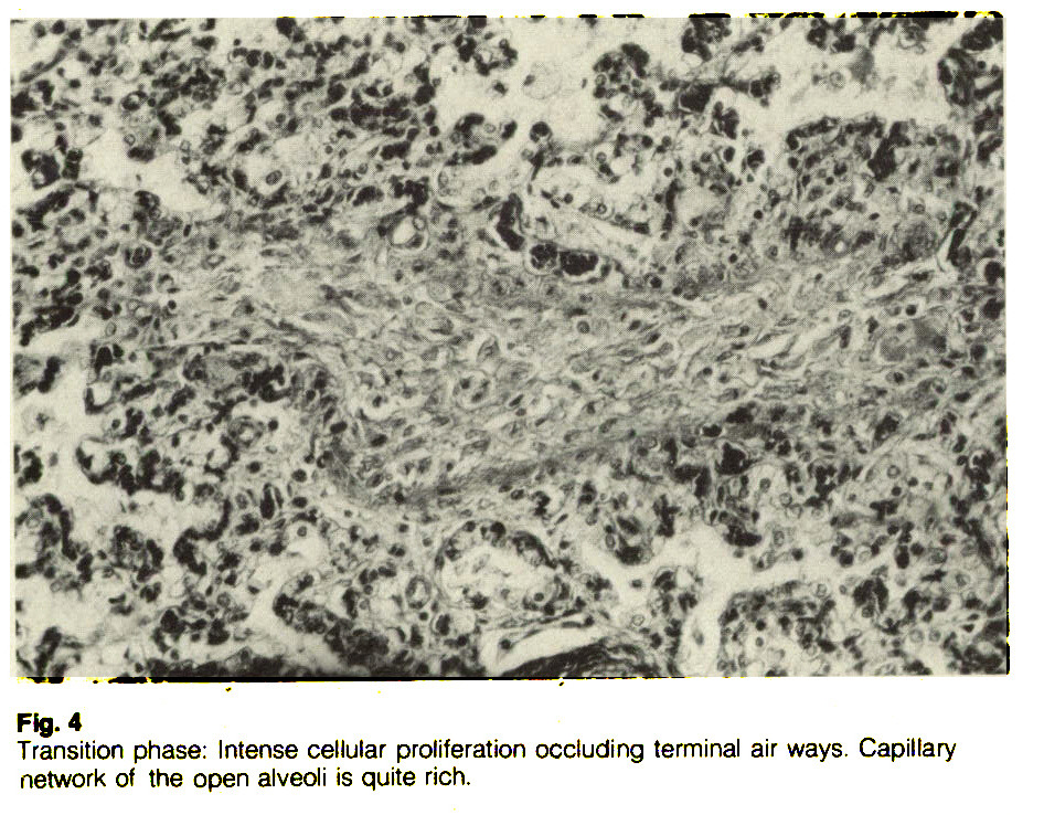Fig. 4Transition phase: Intense cellular proliferation occluding terminal air ways. Capillary network of the open alveoli is quite rich.
