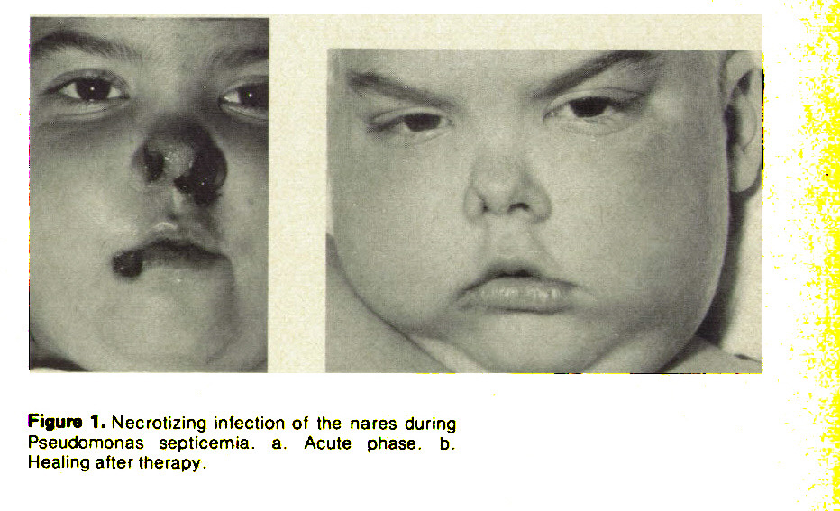 Figure 1. Necrotizing infection of the nares during Pseudomonas septicemia, a. Acute phase, b. Healing after therapy.