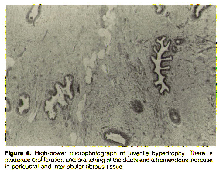 Figure 5. High-power microphotograph of juvenile hypertrophy. There is moderate proliferation and branching of the ducts and a tremendous increase in periductal and interlobular fibrous tissue.
