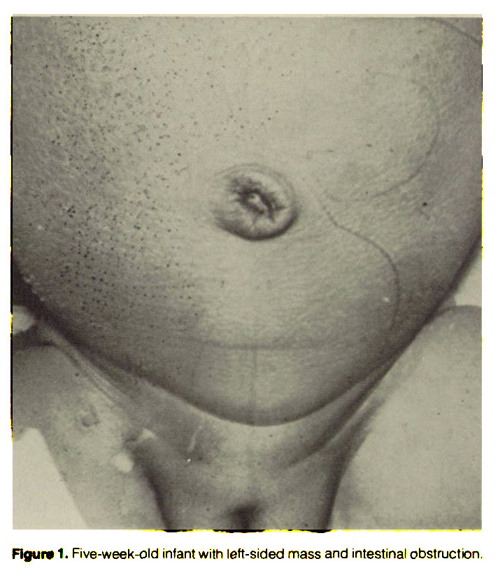 Figure 1. Five-week-old infant with left-sided mass and intestinal obstruction.