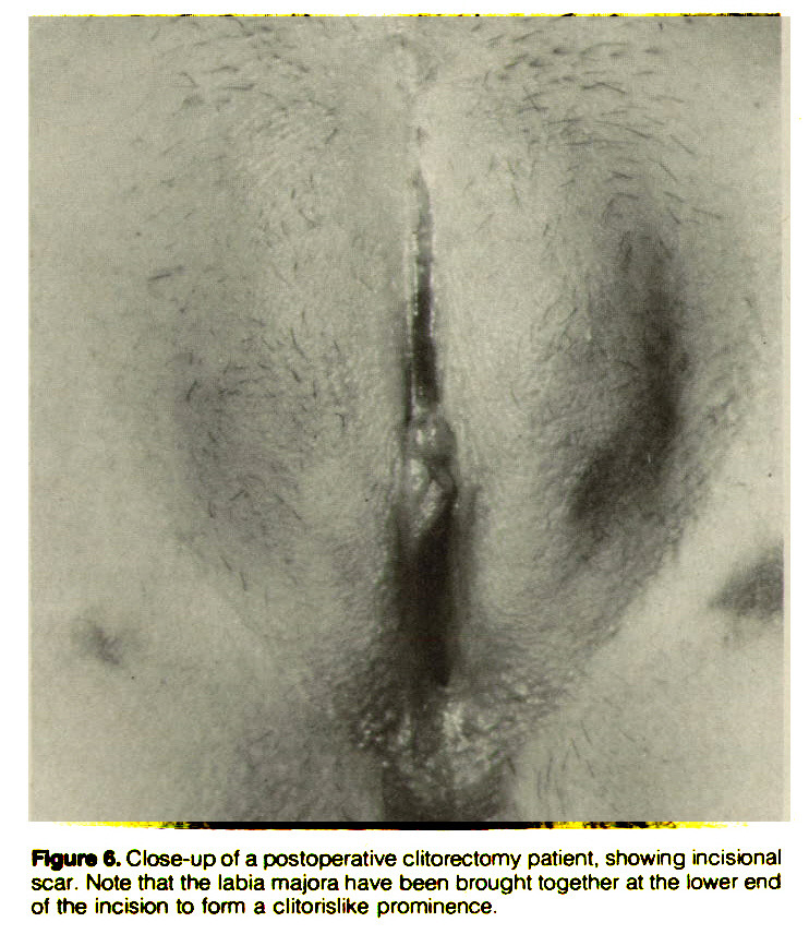 Figure ß. Close-up of a postoperative clitorectomy patient, showing incisional scar. Note that the labia majora have been brought together at the lower end of the incision to form a clitorislike prominence.