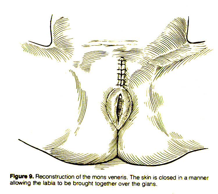 Figure 9. Reconstruction of the mons veneris. The skin is closed in a manner allowing the labia to be brought together over the glans.