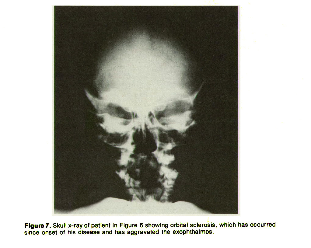 Figure 7. Skull x-ray of patient in Figure 6 showing orbital sclerosis, which has occurred since onset of his disease and has aggravated the exophthalmos.