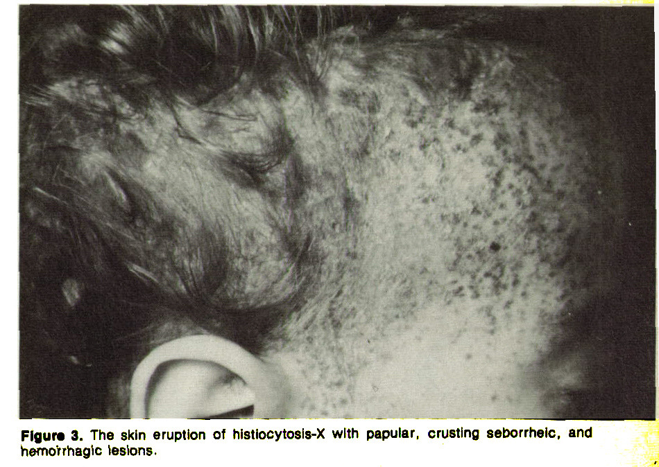 Figure 3. The skin eruption of histiocytosls-X with papular, crusting seborrhelc, and hwno'trhagic lesions.