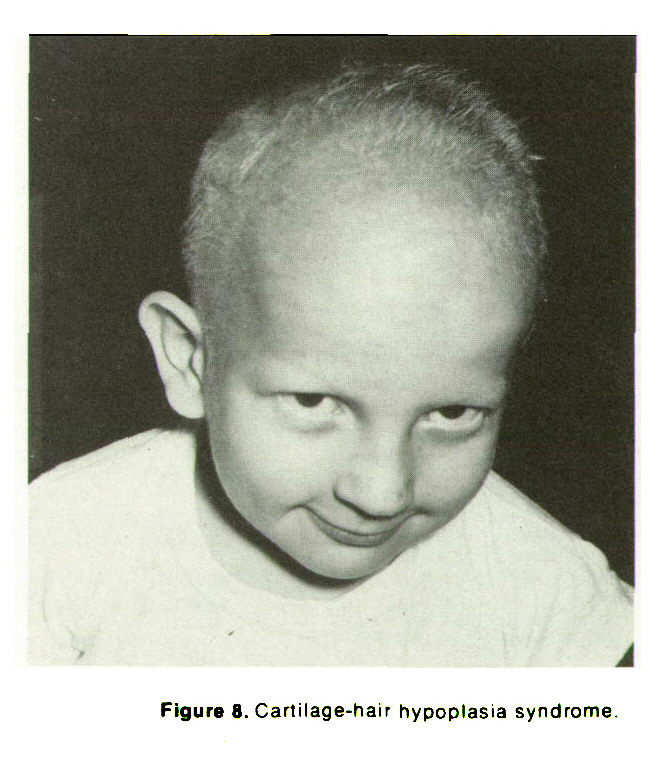 Figure 8. Cartilage-hair hypoplasia syndrome.
