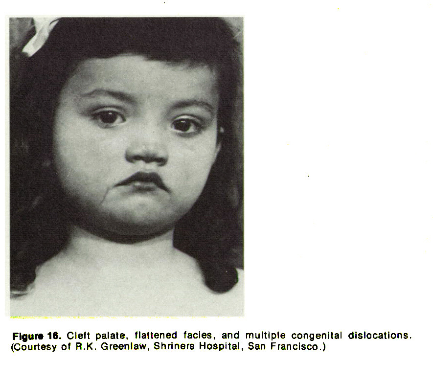 Figurais. Cleft palate, flattened facies, and multiple congenital dislocations (Courtesy of R. K. Greenlaw, Shriners Hospital, San Francisco.)