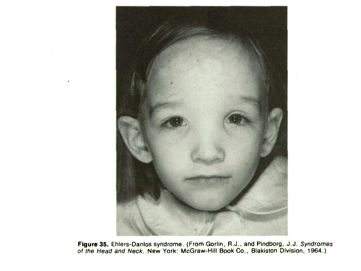 Figure 35. Ehlers-Danlos syndrome. (From Gorlin, R. J.. and Pindborg, J. J. Syndromes of ihe Head and Neck. New York: McGraw-Hill Book Co.. Blakiston Division. 1964.)
