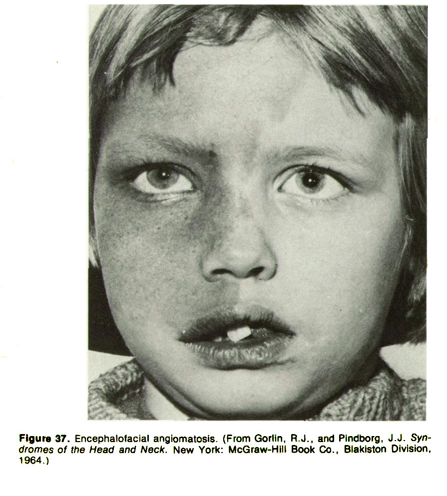 Figure 37. Encephalolacial angiomatosis. (From Gorlin, R. J., and Pindborg, J. J. Syndromes of the Head and Neck. New York: McGraw-HIII Book Co., Blakiston Division, 1964.)