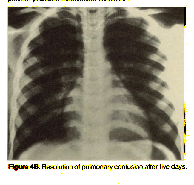 Figure 4B. Resolution of pulmonary contusion after five days.