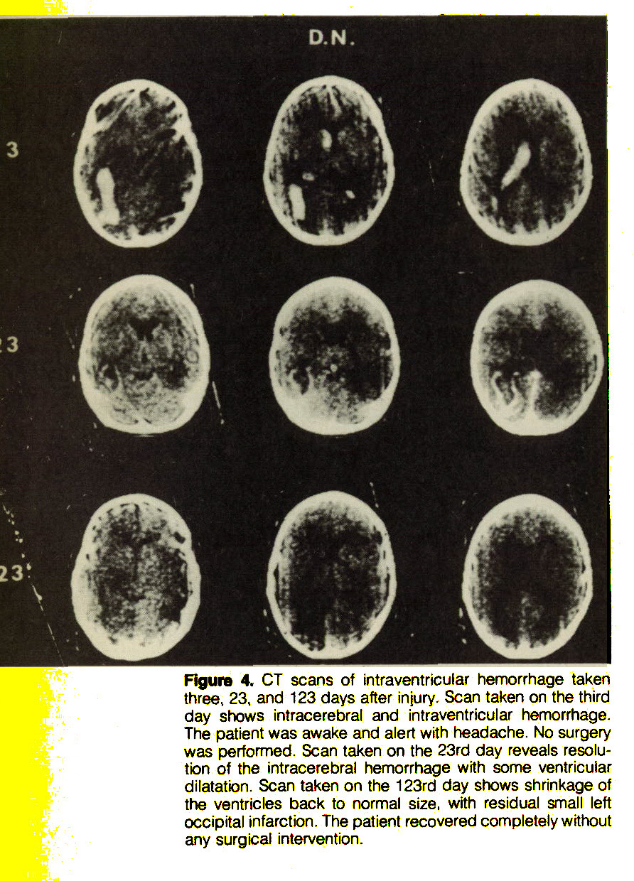 Figure 4. CT scans of intraventricular hemorrhage taken three, 23, and 123 days after injury. Scan taken on the third day shows intracerebral and intraventricular hemorrhage. The patient was awake and alert with headache. No surgery was performed. Scan taken on the 23rd day reveals resoluten of the intracerebral hemorrhage with some ventricular dilatation. Scan taken on the 123rd day shows shrinkage of the ventricles back to normal size, with residual small left occipital infarction. The patient recovered completely without any surgical intervention.