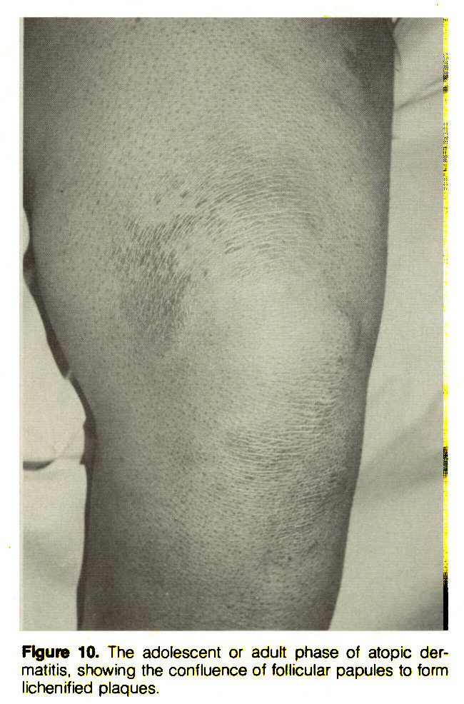 Figure 10. The adolescent or adult phase of atopic dermatitis, showing the confluence of follicular papules to form lichenified plaques.