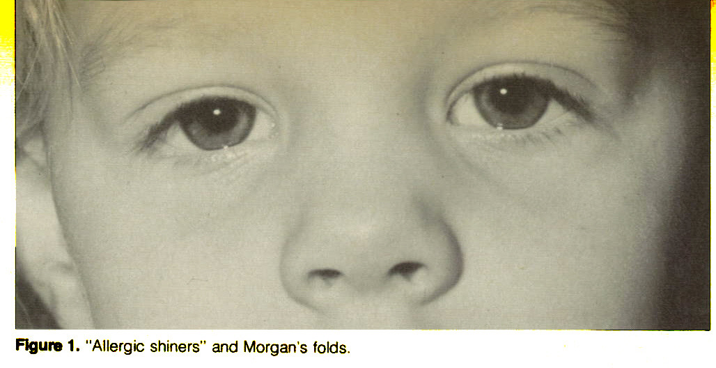 """Figure 1. """"Allergic shiners"""" and Morgan's folds."""