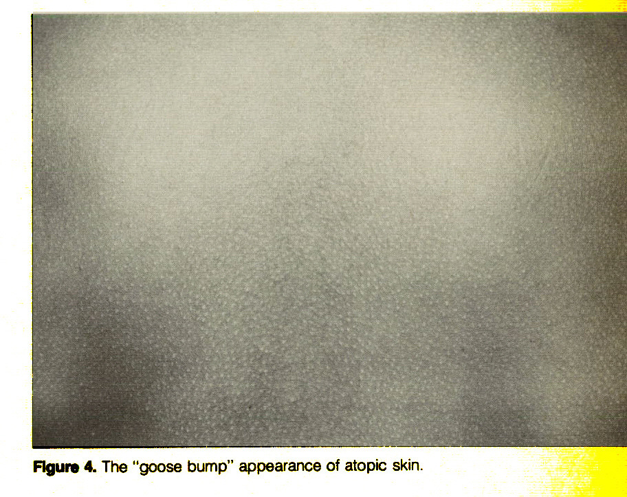 """Figure 4. The """"goose bump"""" appearance of atopic skin."""