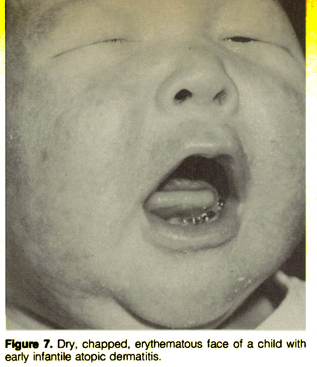 Figure 7. Dry, chapped, erythematous face of a child with early infantile atopic dermatitis.